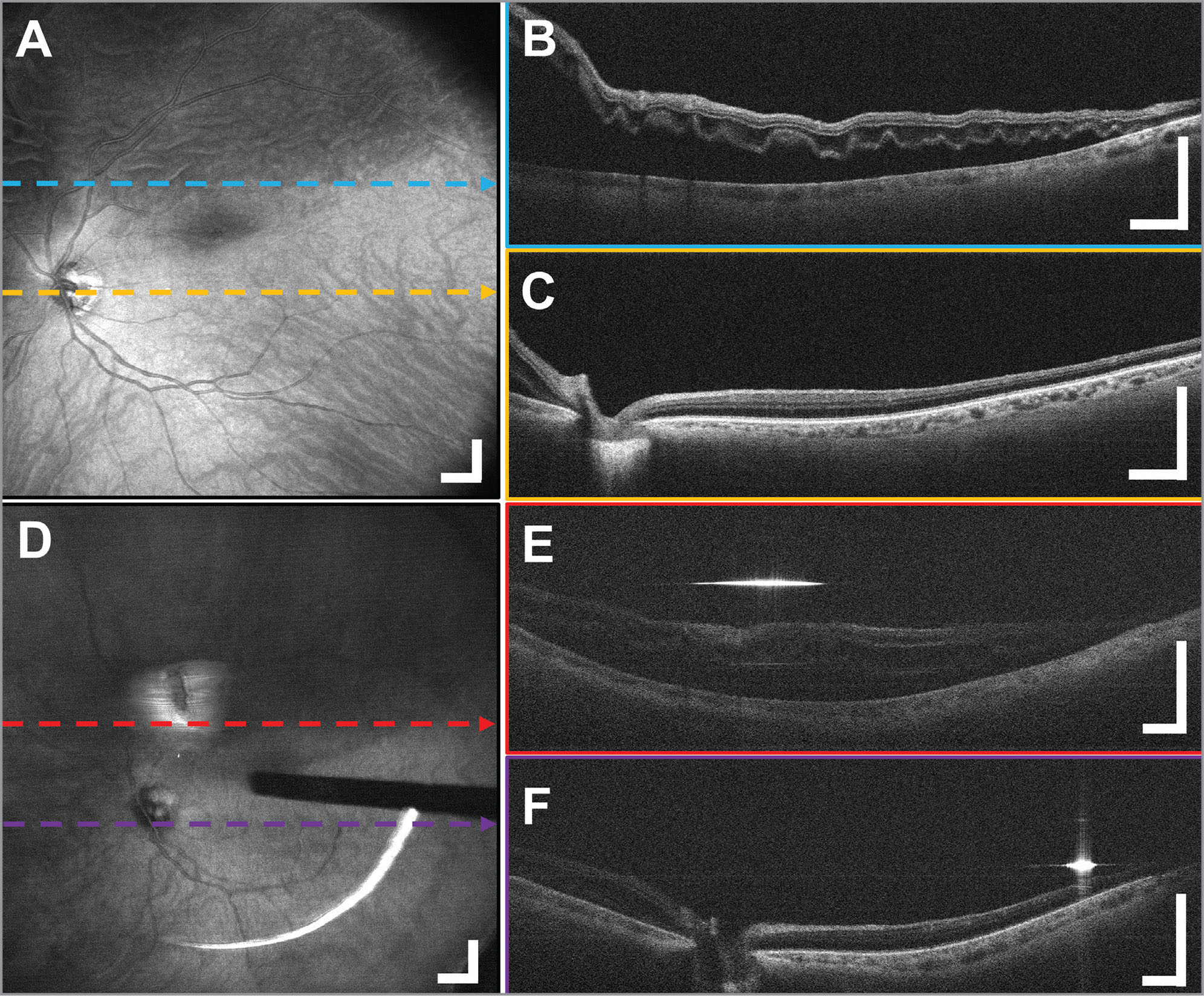 Widefield optical coherence tomography (OCT) before and after rhegmatogenous retinal detachment repair in a 60-year-old male subject imaged through the custom anti-reflection-coated 80 diopter non-contact fundus lens. The subretinal fluid volume before and after air-fluid exchange can be visualized. A 12 × 12 mm2 (A) en face OCT projection shows the rippled appearance of detachment and reduced OCT signal before air-fluid exchange. (B, C) Representative B-scans show how the long imaging range captured the subretinal fluid extending to the macular region. A 15 × 15 mm2 (D) widefield en face OCT projection after air-fluid exchange showing the vitrectomy probe shadow. With the same scan parameters, the field of view increased due to the replacement of vitreous by air. (E, F) Representative B-scans have reduced signal due to reflective losses at air-fluid interfaces. The B-scans show residual subretinal fluid in the superior retina and a flattening of the retinal contour. Strong reflections from the air-fluid interfaces caused bright bands. Cross-sections are averages of five adjacent B-scans. Scale bars are 1 mm.