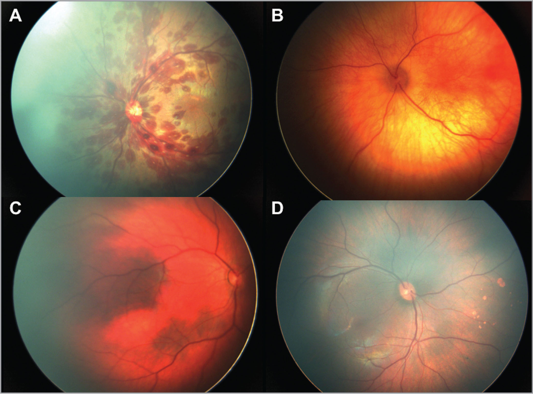 Abnormal posterior segment findings. (A) Extensive white-centered extrafoveal hemorrhages, subretinal foveal hemorrhage, and flame hemorrhages; (B) albinotic appearing retina; (C) choroidal pigmentation; and (D) nasal polar bear tracks