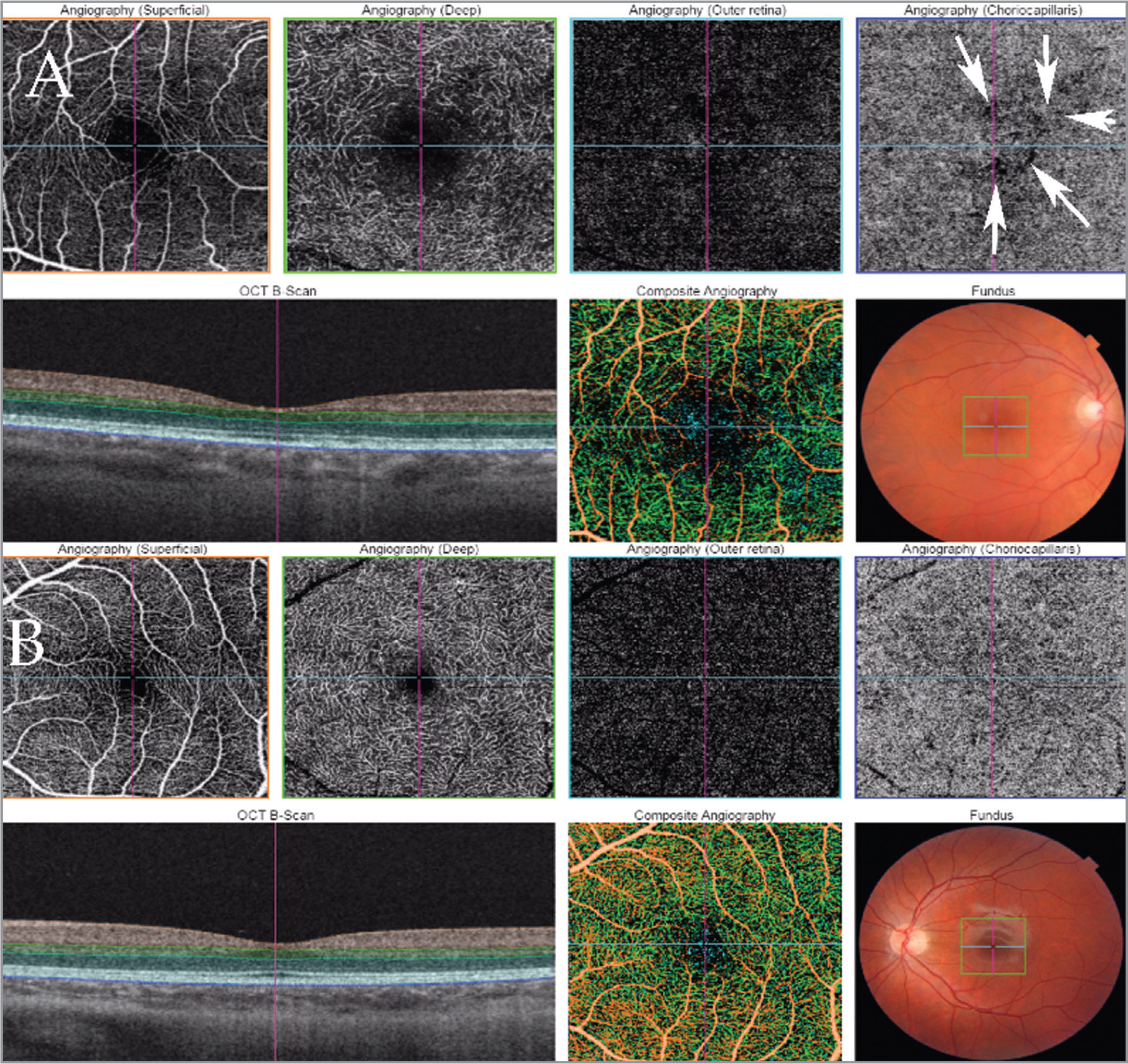 Swept-source optical coherence tomography angiography comparison between the fellow eye of full-thickness macular hole (FTMH) (top) and a healthy eye (bottom). Orange frame: Retina at the level of superficial vessels. Green frame: Retina at the level of deep retinal vessels. Light blue frame: Retina at the level of retinal pigment epithelium. Dark blue frame: Level of choriocapillaris. Arrows: Area of deteriorated reflectivity at the choriocapillaris layer in the fellow eye of FTMH.
