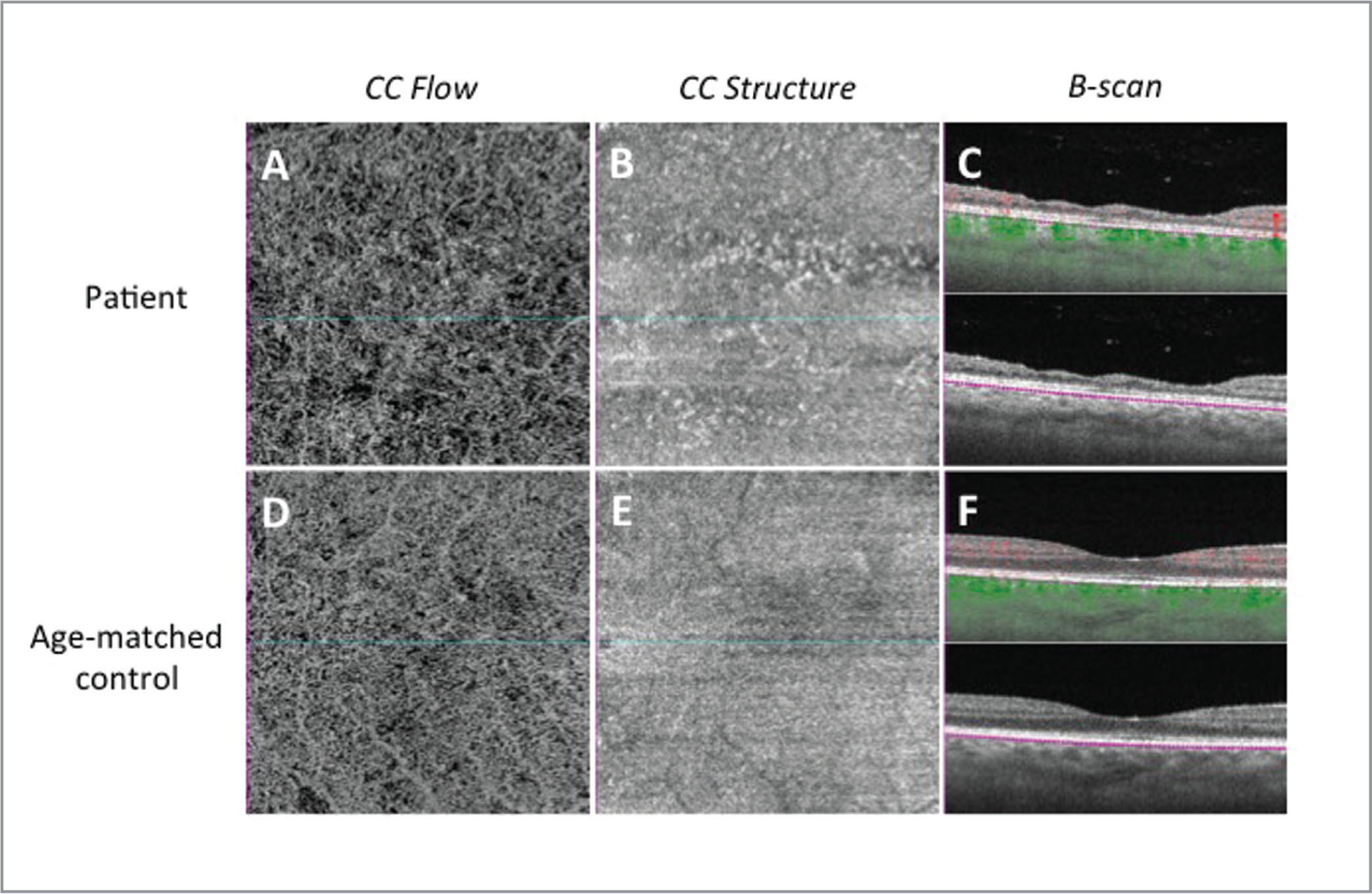 Swept-source optical coherence tomography angiography of the choriocapillaris (CC) of the right eye. En face images of (A) CC flow, (B) CC structure, and (C) corresponding cross-sectional B-scans of this patient demonstrate reduced CC flow with an increase in the number and area of flow voids. (D–F) Images from an age-matched control are provided for reference; en face images of (D) CC flow, (E) CC structure, and (F) corresponding cross-sectional B-scans.