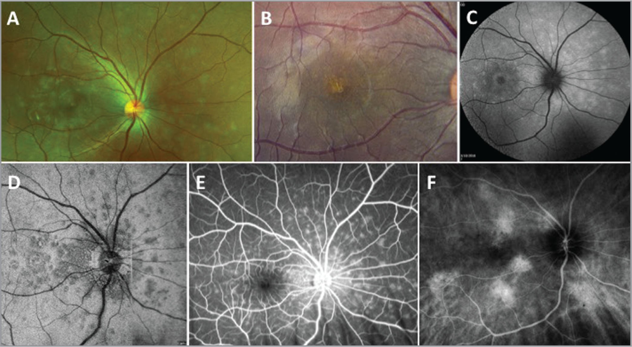 Imaging on initial presentation. (A) Color fundus images showing multiple white dots surrounding the macula and optic nerve. (B) Fundus image showing foveal hypopigmentation. (C) Fundus autofluorescence showing speckled hyperautofluorescent dots corresponding to the to the hyporeflective lesions noted on swept-source optical coherence tomography en face images of the ellipsoid zone (D). (D) En face outer retinal slab of the ellipsoid zone measure 20 μm to 40 μm above the retinal pigment epithelial layer. (E) Fluorescein angiography imaging demonstrating typical wreath-like hyperfluorescence around macula and optic nerve. (F) Indocyanine green angiography (ICGA) showing multiple areas of choroidal hyperpermeability but no hypofluorescent foci. Aside from ICGA, all of these images were consistent with a presentation of multiple evanescent white dot syndrome.