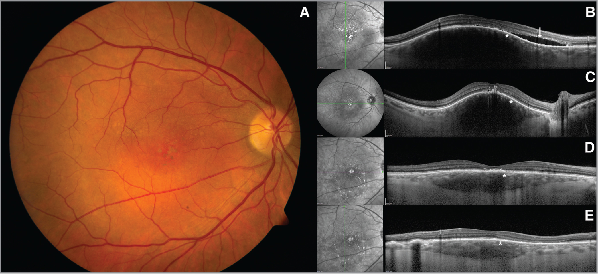 (A) Choroidal hemangioma on the macula causing decreased vision. (B, C) On enhanced depth imaging optical coherence tomography, normal-looking honeycomb-like choriocapillaris (asterisk), overlying subretinal fluid, and exudates (arrow) are visible. (D, E) After photodynamic therapy, the choriocapillaris showed normal-looking honeycomb-like pattern with sclerosis (asterisk). Subretinal fluid improved.