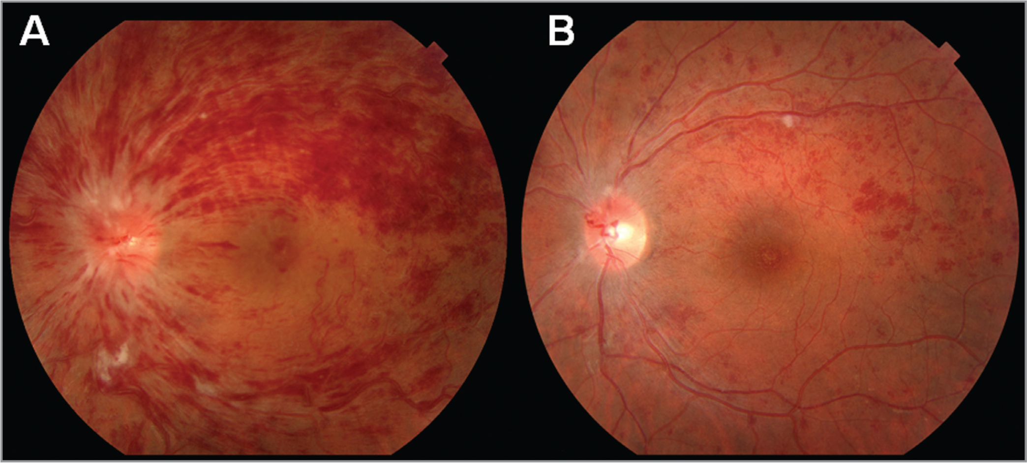 Color fundus images of a central retinal vein occlusion in the left eye. (A) At initial presentation, the fundus images revealed diffused pre-retinal and intraretinal hemorrhages associated with tortuous vessels, cotton-wool spots along the arcades, and optic disc edema. (B) Four weeks after a single intravitreal injection of steroid at the first visit, the fundus image showed resolving retinal hemorrhages with a residual cotton-wool spot along the superior arcade.