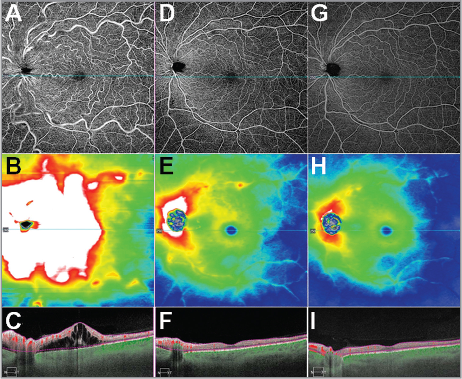 12 mm × 12 mm swept-source optical coherence tomography angiography images and total retinal thickness maps of the left eye at baseline and at follow-up visits. (A–C) Baseline visit. (D–F) Four weeks after one intravitreal steroid injection. The residual cotton-wool spot along the superior arcade can been seen in the retinal en face flow image and in the thickness map. (G–I) Five months after the intravitreal injection. (A, D, G) Total retina en face flow image. (B, E, H) Total retinal thickness map. (C, F, I) B-scans through the fovea with dashed purple boundaries representing the boundaries for the en face images shown. Flow above the retinal pigment epithelium (RPE) is depicted in red and flow below the RPE is depicted as green.