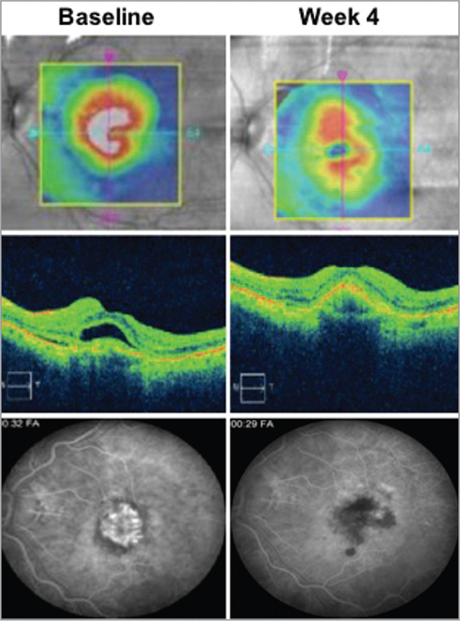 Baseline and outcome measurements in an 83-year-old white female with treatment-naïve neovascular age-related macular degeneration. Baseline (left column) and 4 weeks post-study drug (right column) showing top, middle (optical coherence tomography), and bottom (fluorescein angiography). Baseline best-corrected visual acuity (BCVA) was 58 letters and central retinal thickness of 467 μm, Week 4: BCVA +11 letters, optical coherence tomography −175 μm.