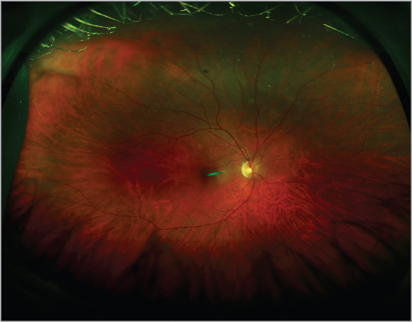 The appearance of a symptomatic Weiss ring in front of the fovea. The patient noted difficulty reading when the floater drifted within his central visual axis.