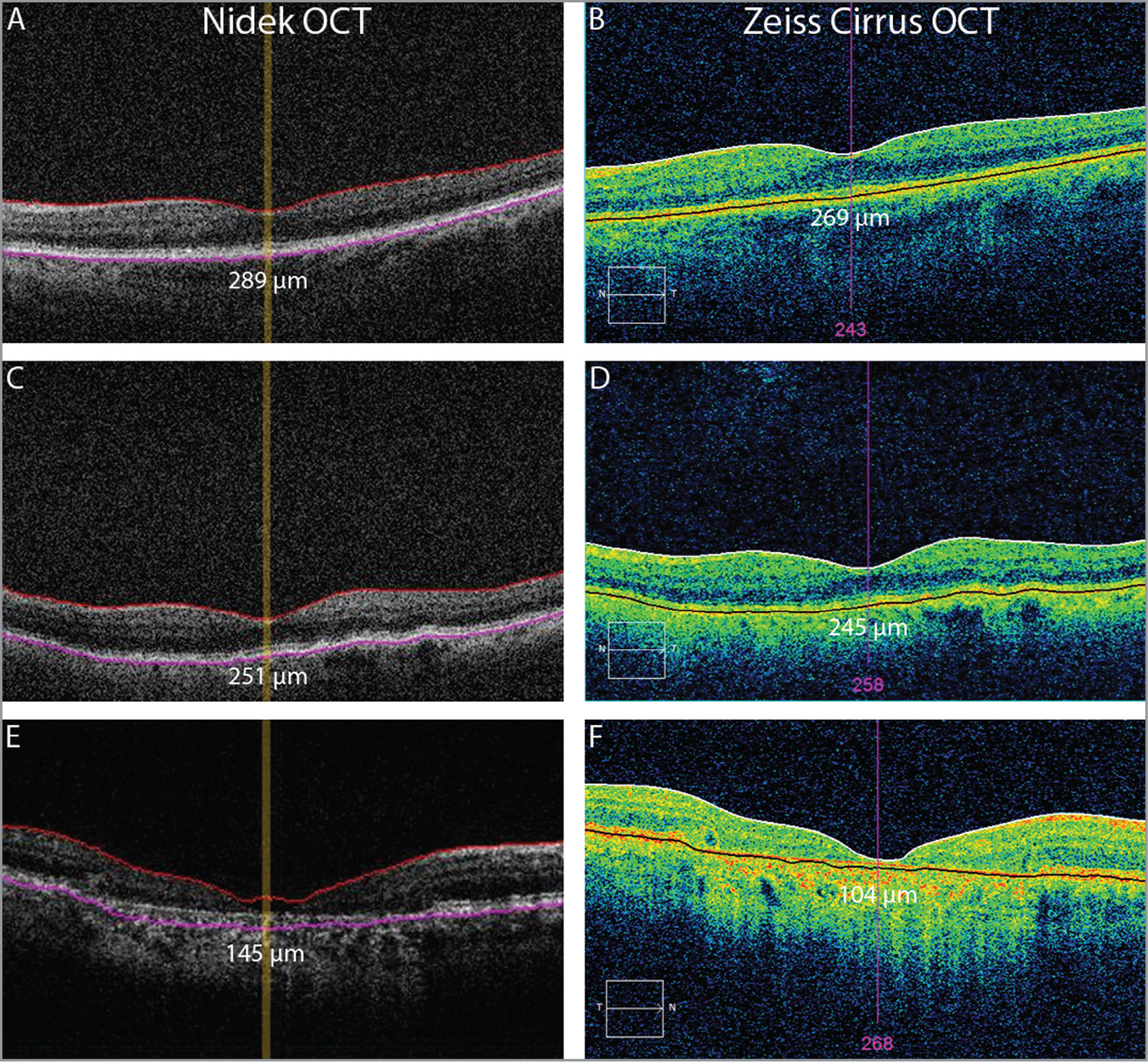 Positioning of retinal boundaries in the Nidek (A, C, E) and Zeiss Cirrus (B, D, F) optical coherence tomography (OCT) devices, (A, B) to generate the mean of the difference between measurements of the two OCT devices in an eye affected by early age-related macular degeneration (AMD) (drusen). The distance used by the two algorithms to calculate the macular thickness is indicated by the red arrow. Both instruments set the inner retinal boundary at the level of the internal limiting membrane (ILM). The outer retinal boundary is set by Nidek OCT at the external limit of retinal pigment epithelium (RPE), whereas the Zeiss Cirrus OCT identifies this boundary in the middle/within the RPE layer. Below the red arrows, we reported the corresponding mean macular thickness from the central circular 1,000 μm area; (C, D) the minimum difference in macular thickness evaluated by Nidek and Zeiss Cirrus OCT in a case of early AMD (drusen). Note the slightly different positioning of the retinal boundaries in both OCT devices, leading to a small difference in macular thickness measurement. (E,F) The maximum difference in macular thickness evaluated by Nidek and Zeiss Cirrus OCT in a case of geographic atrophy involving the foveal center. Note the different positioning of both retinal boundaries in both OCT devices, leading to a big difference in macular thickness measurement.