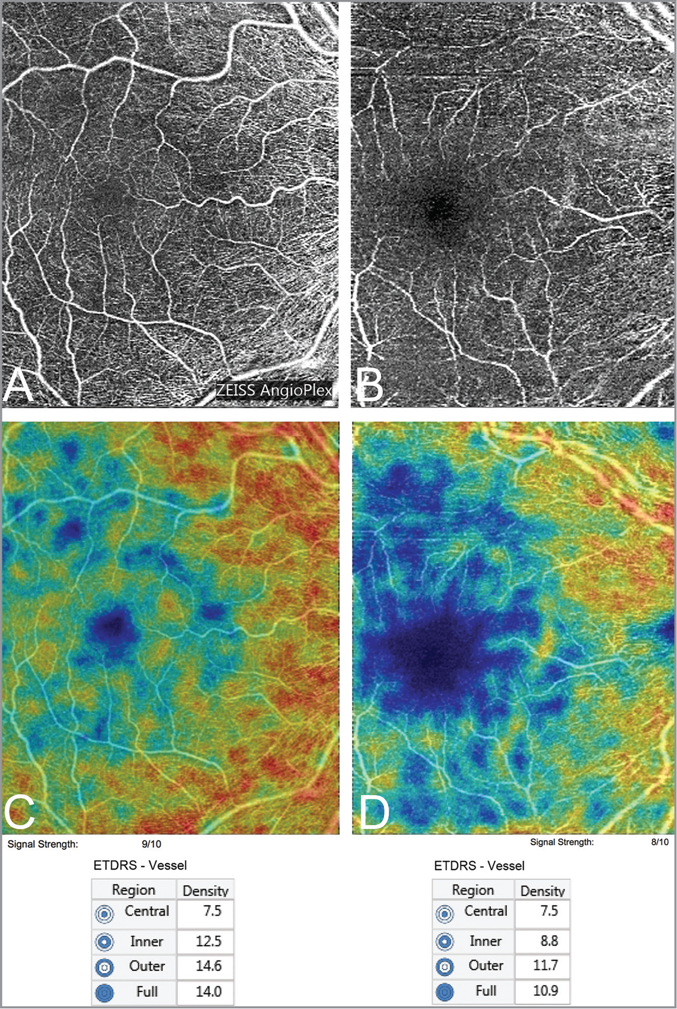 Optical coherence tomography angiography images of the superficial capillary plexus (SCP) of the twin sisters. Panel A (signal strength 9/10) shows the SCP of the cognitively normal twin with a relatively well-preserved foveal avascular zone (FAZ) and SCP, whereas B (signal strength 8/10) shows the twin with Alzheimer's disease (AD) where there is a marked decrease in the SCP vessel density and an enlarged FAZ. C and D show the corresponding quantitative color-coded vessel density maps in the SCP (Angioplex Vessel Map, SW 10.0.0.12787; Carl Zeiss Meditec, Dublin, CA; investigational use software in the U.S., commercially available in some markets outside of the U.S.) The color map shows a marked decrease in the SCP vessel density in the twin with AD (middle left) compared to the cognitively normal twin (middle right). The corresponding vessel density numerical values shown in the various Early Treatment Diabetic Retinopathy Study grid regions shown on the bottom are significantly lower in the twin with AD.