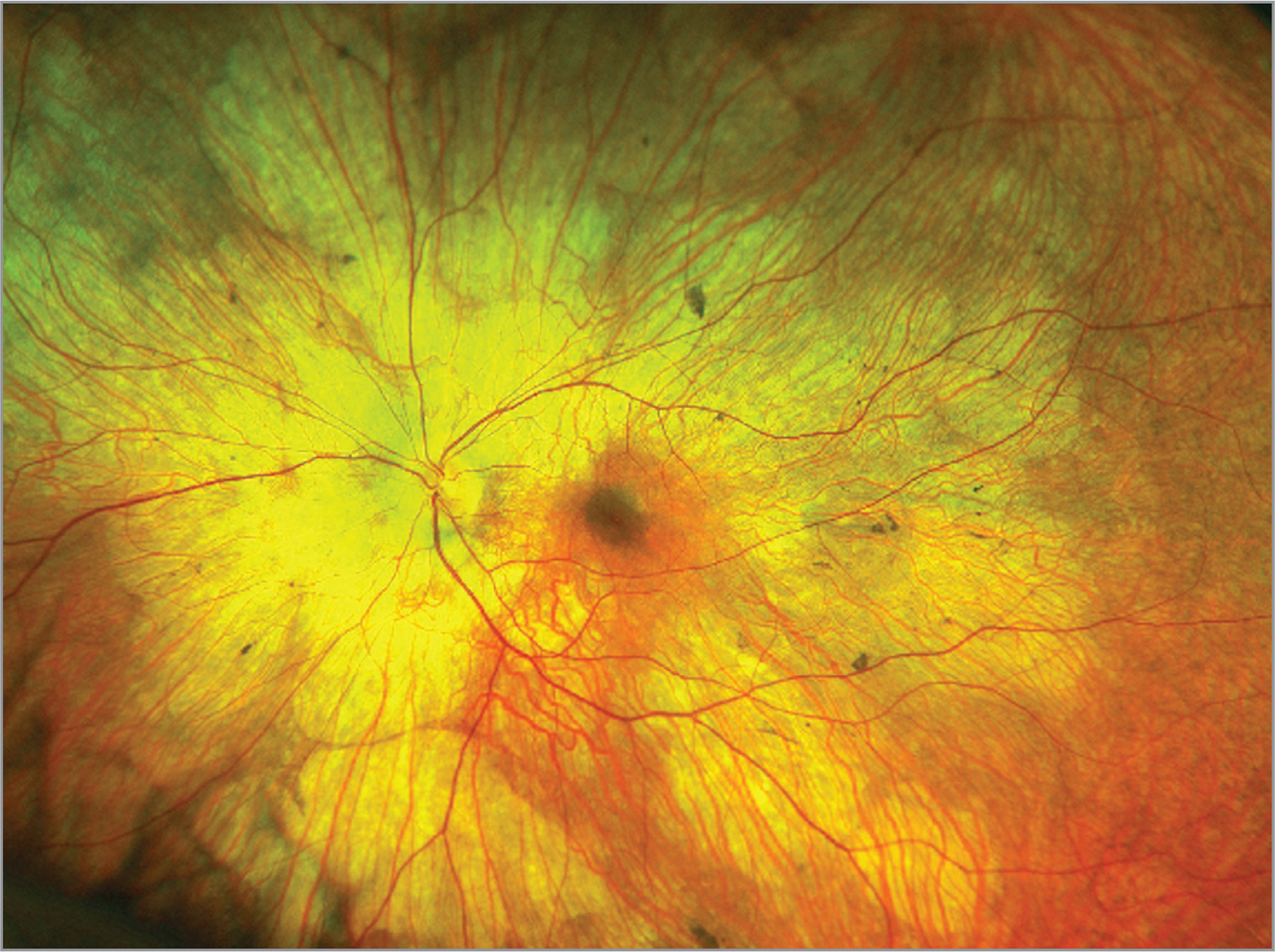 Fundus widefield photo of the left eye of a male with choroideremia. The fundus shows scalloped areas of chorioretinal atrophy and pigment clumping with relative preservation of the central macula.