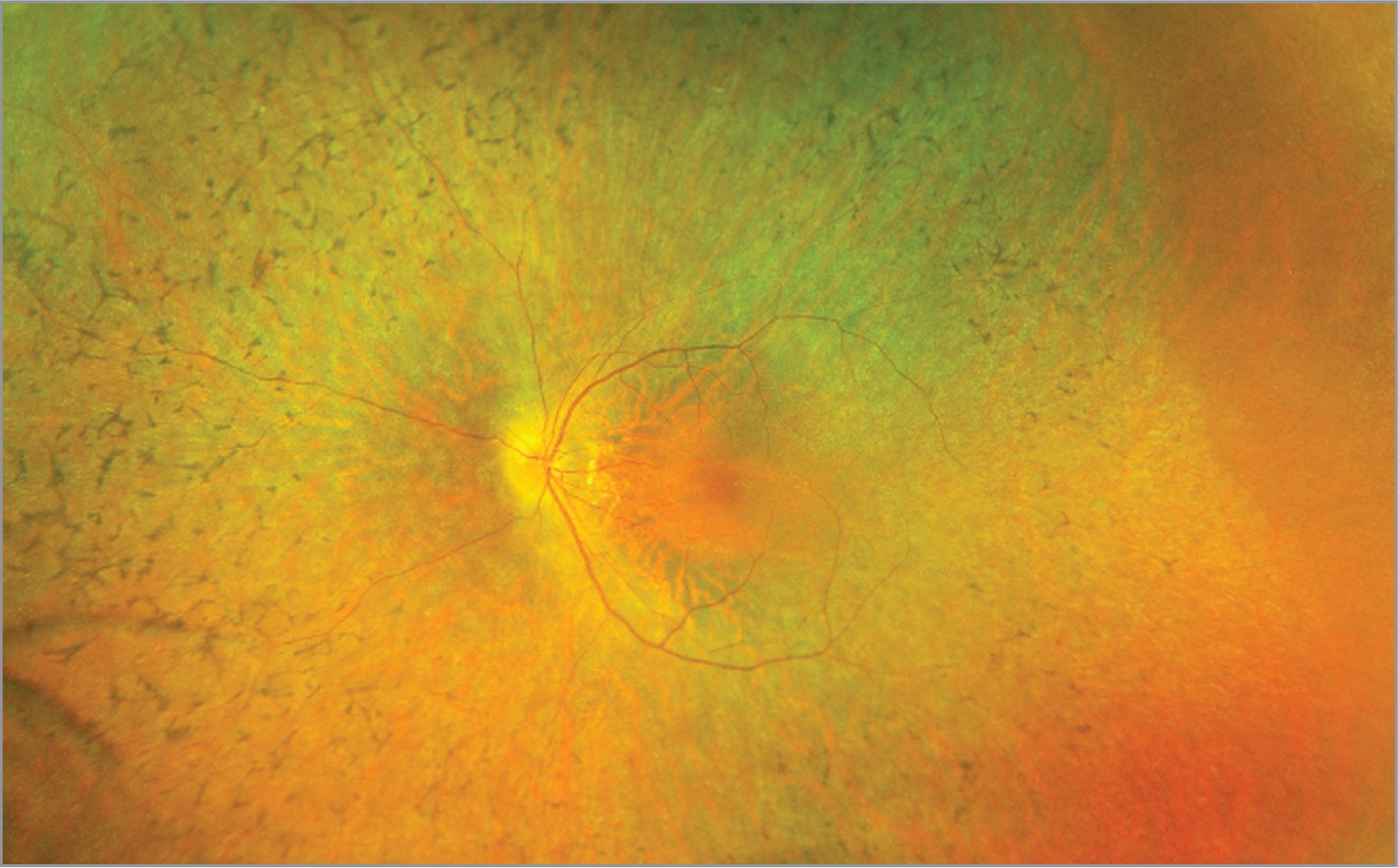 Widefield fundus photo of the left eye of a young male with X-linked retinitis pigmentosa. The retinal exam shows a tilted disc consistent with myopia and attenuation of the arterioles with retinal dystrophy extending to the periphery with bone spicule-like pigmentation.