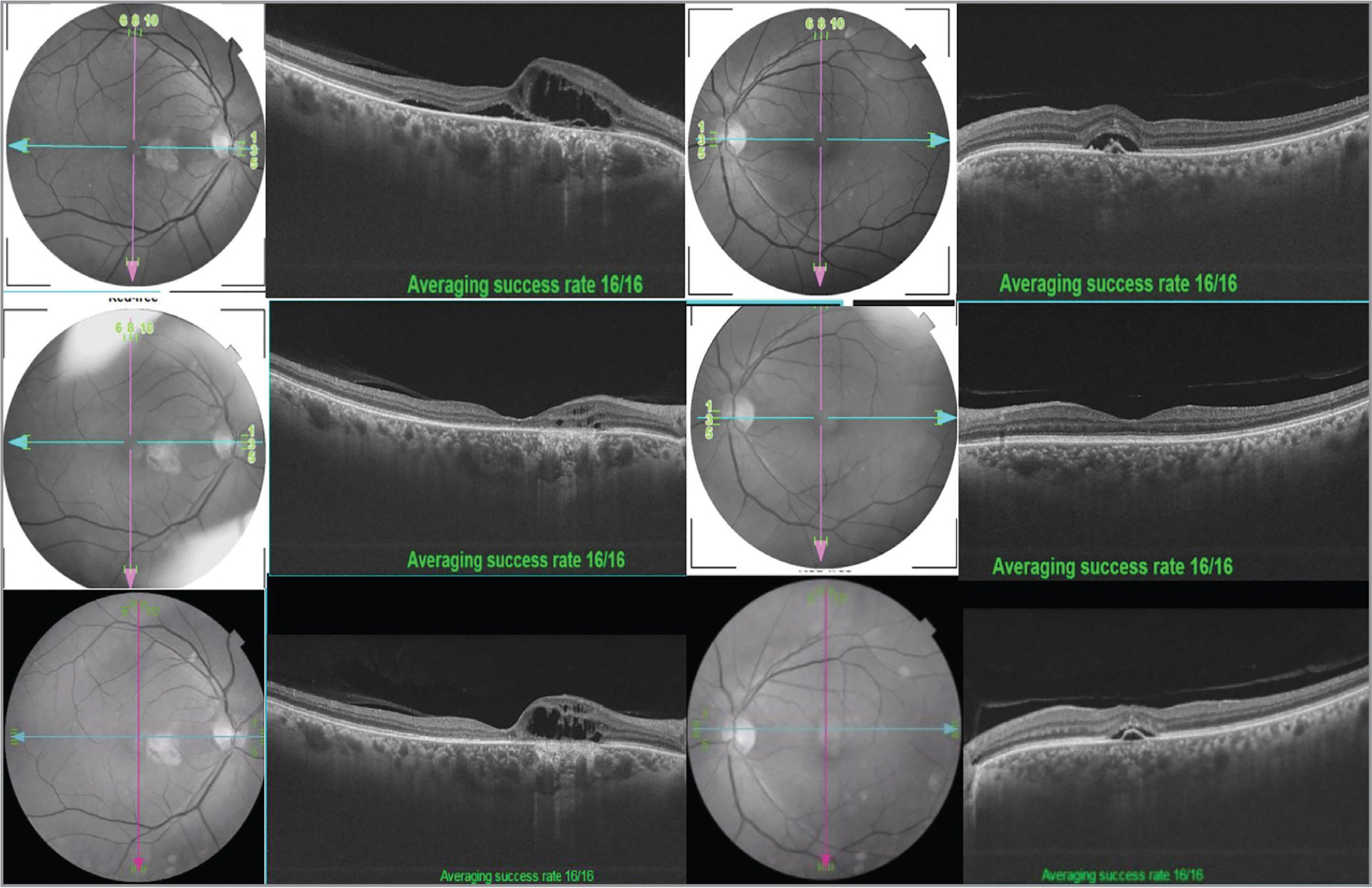 A 62-year-old female presented with blurring of vision for a 6-month duration in both eyes. Her best-corrected visual acuity (BCVA) was 20/200 and 20/25 in right and left eyes, respectively. Clinical examination and angiography showed signs of chronic central serous chorioretinopathy with presence of shallow subretinal fluid and chronic cystoid changes on swept-source optical coherence tomography (SS-OCT) in her right eye and shallow subretinal fluid and a pigment epithelial detachment in her left eye (top panel). She was started on oral eplerenone 50 mg daily for 1 month, then 25 mg daily for 2 months. At the 3-month follow-up, her BCVA improved to 20/125 and 20/20 in the right and left eyes, respectively, with significant improvement on SS-OCT (middle panel) and treatment was stopped. Six-month follow-up after cessation of treatment revealed a reduction in her right eye BCVA to 20/200, whereas left eye remained at 20/20. SS-OCT revealed signs of recurrence of the disease (bottom panel).