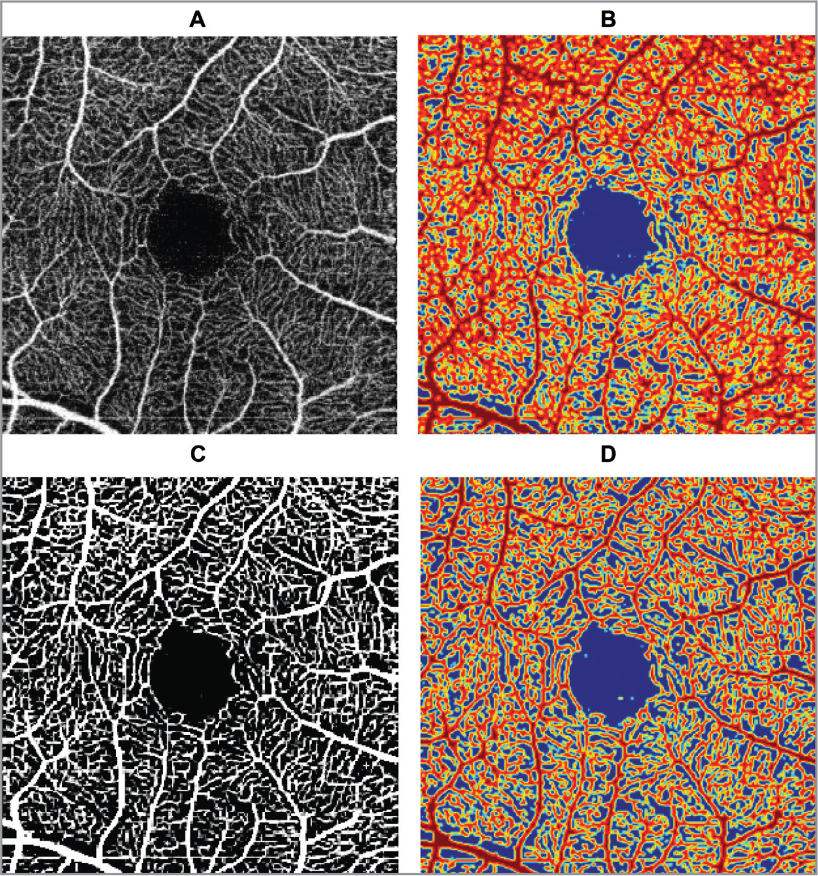 Swept-source optical coherence tomography image of the superficial plexus before (A) and after (B) the application of Frangi filter, respectively. Corresponding contour maps (C, D).