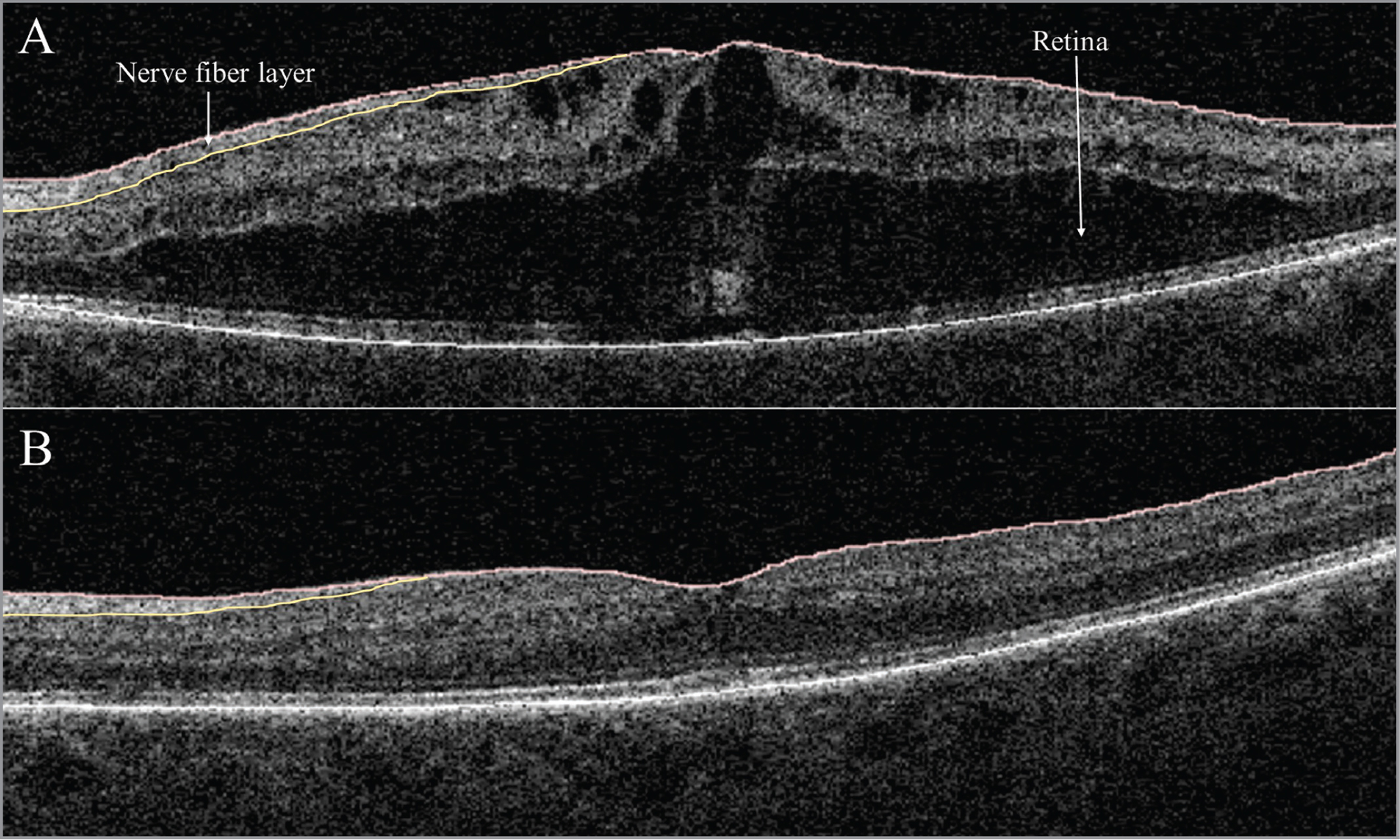 Example study case (A) of diabetic macular edema in the left eye with wet retinal volume of 17.53 mm3. (B) Post-therapeutic reduced macular edema with original retinal volume of 10.19 mm3 and adjusted dry retinal volume of 10.45 mm3.