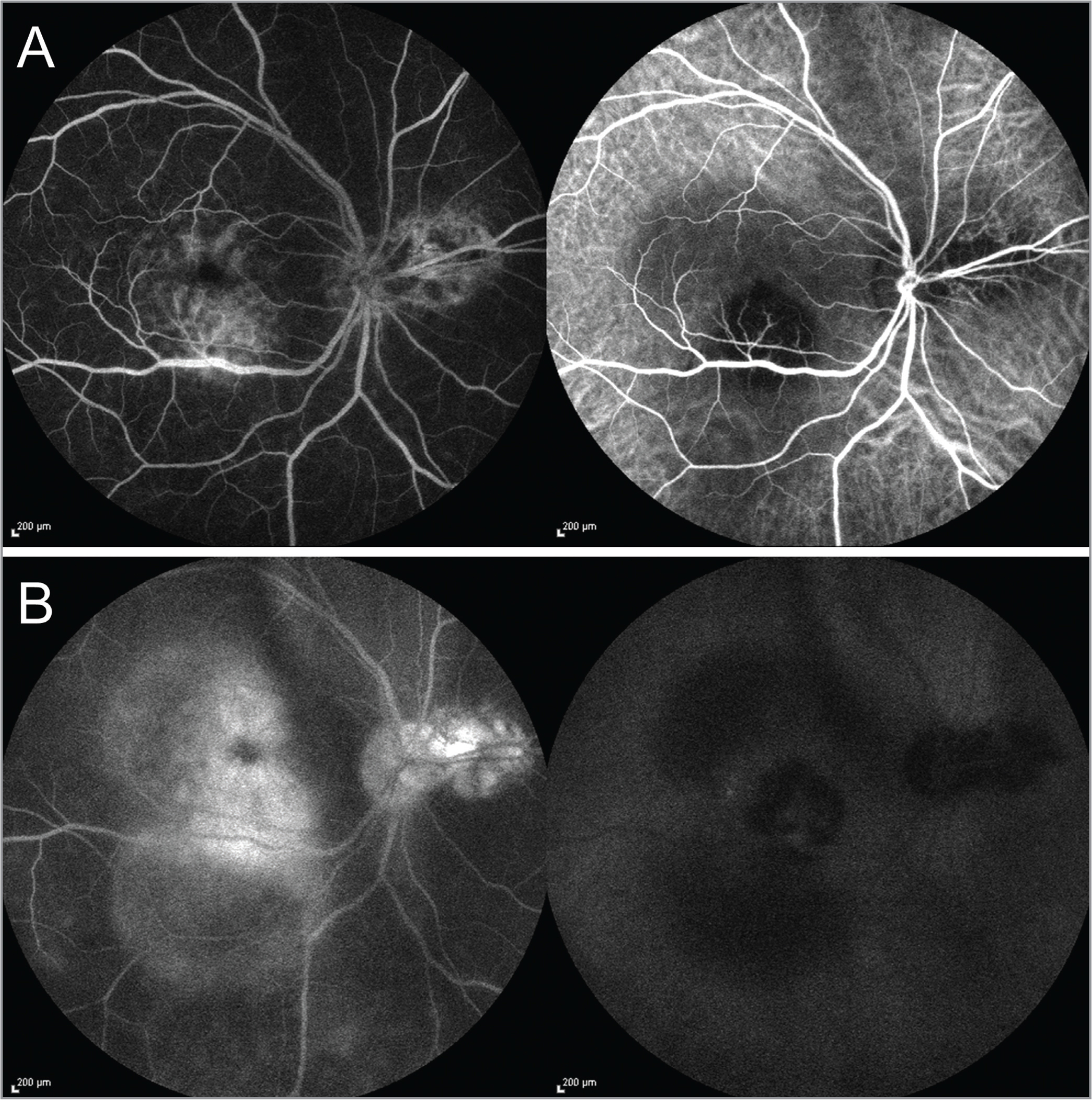 Combined fluorescein angiography (FA) and indocyanine green angiography (ICGA) of the right eye at presentation. (A) Early phase of FA shows stippled hyperfluorescence just inferior to the fovea and transmission hyperfluorescence corresponding to the chorioretinal scar nasal to the optic disc, whereas the ICGA shows a round hypocyanescent lesion inferior to the fovea and nasal to optic disc. (B) Late phase of FA shows progressive hyperfluorescence with pooling of dye and staining of the healed scar nasal to the optic disc, whereas the ICGA shows persistent hypocyanescence with a faint isocyanescence in the center of the macular lesion and persistent hypocyanescence in the area of the healed chorioretinal scar. These findings suggest that the lesion in posterior pole was active with a relatively full-thickness choroidal granuloma and presence of a healed choroidal lesion with choriocapillaris atrophy nasally. Pooling of the dye in the posterior pole is suggestive of surrounding exudative retinal detachment.