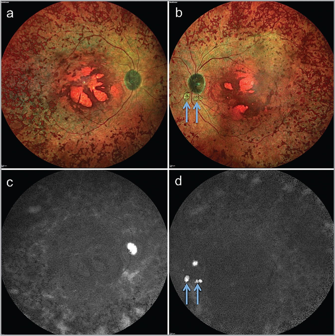 "(a, b) Dilated fundus examination revealed widespread bone spicule pigmentation with ""macular coloboma"" in both eyes (OU). (c, d) Short-wave autofluorescence showed hyperautofluorescent buried optic nerve head drusen and generalized hypoautofluorescence OU. (b, d) The left eye shows parapapillary drusen that resulted from calcification of swollen and disrupted axons at a remote location in the parapapillary area (blue arrows)."
