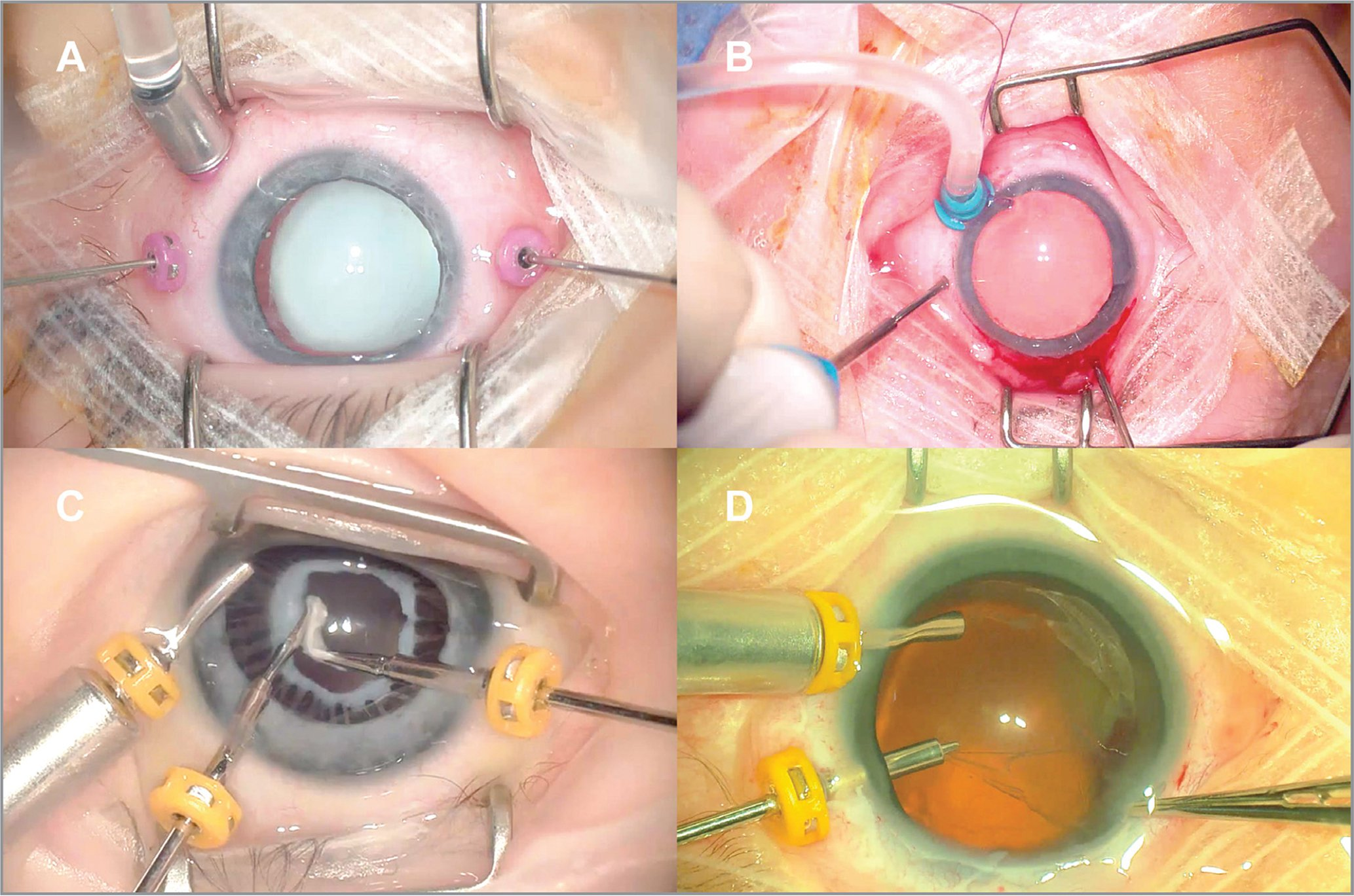Various sclerotomy locations based on age and pathology. (A) 27-gauge vitrectomy for traumatic cataract in an 8-year-old child. All transconjunctival cannulas are placed 3 mm posterior to the limbus in a standard fashion. (B) 25-gauge short vitrectomy for retinopathy of prematurity stage 4A. There is an anterior temporal retinal detachment, so the infusion is sutured nasally, 1 mm posterior to the limbus. The other two sclerotomies are made away from the temporal detachment. All incisions were made after a peritomy, without cannulas. (C) 23-gauge vitrectomy for anterior persistent fetal vasculature (PFV). The infusion is placed in the anterior chamber via the trocar/cannula system. Limbal cannulas are then placed (can also be iris root incisions without cannulas after focal peritomies). PFV can be associated with fingers of retina drawn anteriorly, so unless the pars plana can be confirmed during the exam under anesthesia, staying anterior is recommended. (D) 23-gauge vitrectomy in Norrie disease in a 1-month-old. There is a nasal/inferonasal retinal detachment pulled up to and making contact with the crystalline lens. The temporal infusion is in the anterior chamber, away from the detachment. The superotemporal cannula is through the iris root. A limbal incision is made without a cannula, nasally since space is limited.