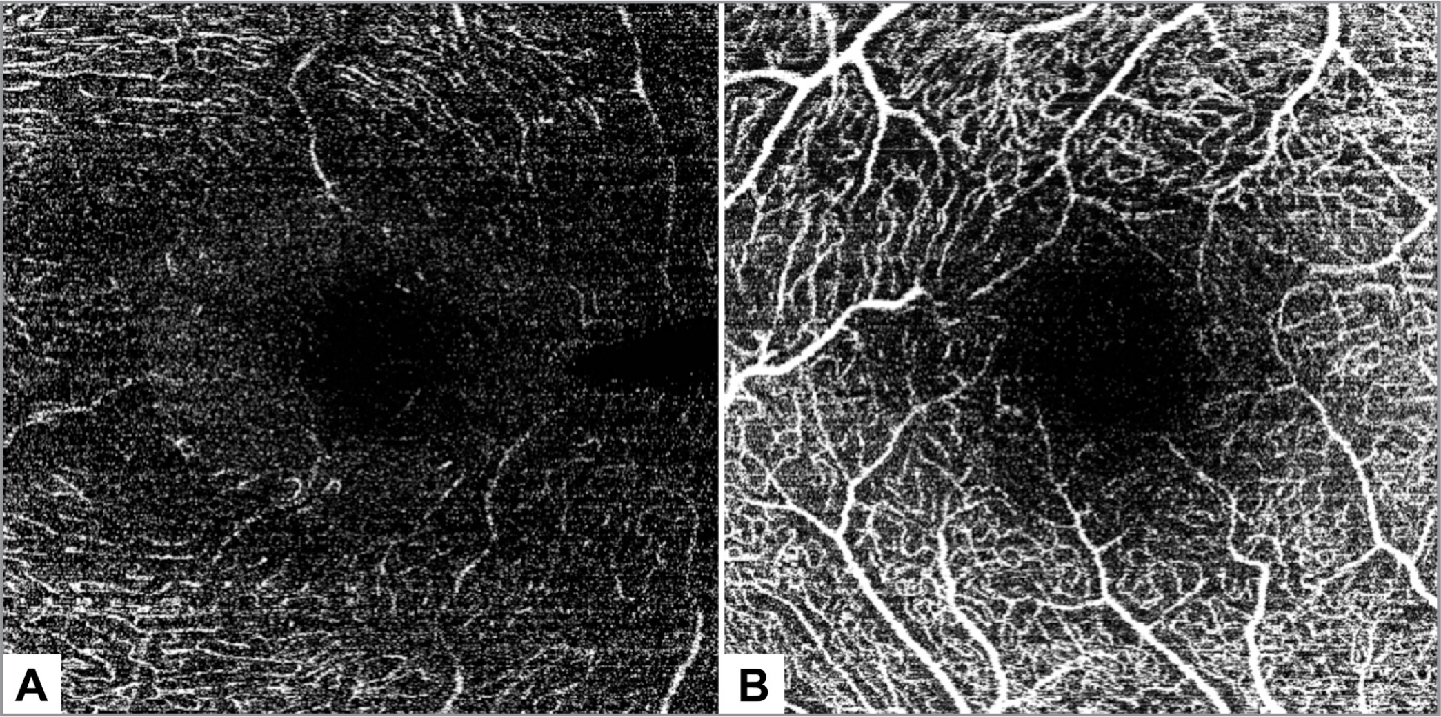 Nerve fiber layer (NFL) and ganglion cell layer (GCL) vascular networks, as acquired by the Heidelberg optical coherence tomography angiography machine (Heidelberg Engineering, Heidelberg, Germany). (A) The NFL vascular network of the left eye of a 29-year-old woman. The foveal avascular zone (FAZ) is barely visible. (B) The GCL vascular network in the right eye of a 35-year-old woman. Although the FAZ is seen more clearly, it was not delineated clearly enough to allow for its correct measurement.