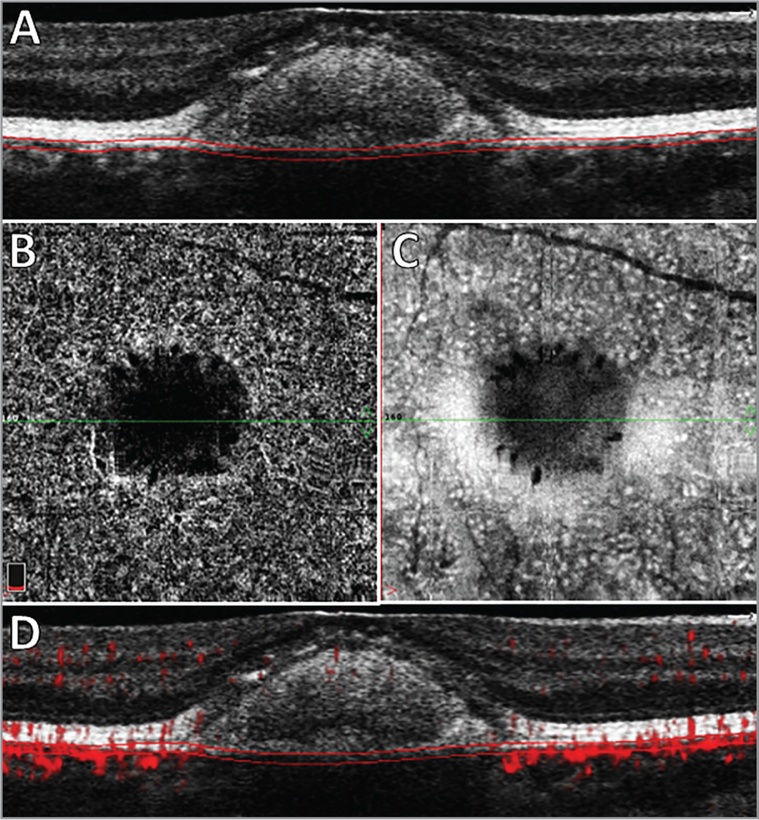 (A) Structural optical coherence tomography (OCT) B-scan shows submacular hyperreflective material between the photoreceptor and retinal pigment epithelium. The parallel red lines indicate the automatic segmentation of the choriocapillaris (CC). (B) En face OCTA flow image of the CC showing a dark central area, suggesting hypoperfusion. (C) Structural image of the CC showing a hyporeflective central area, revealing an attenuation of the signal from the CC, probably due to interference by the submacular hyperreflective material. (D) OCT angiography B-scan exhibiting a questionable decrease in the decorrelation signal from the CC.