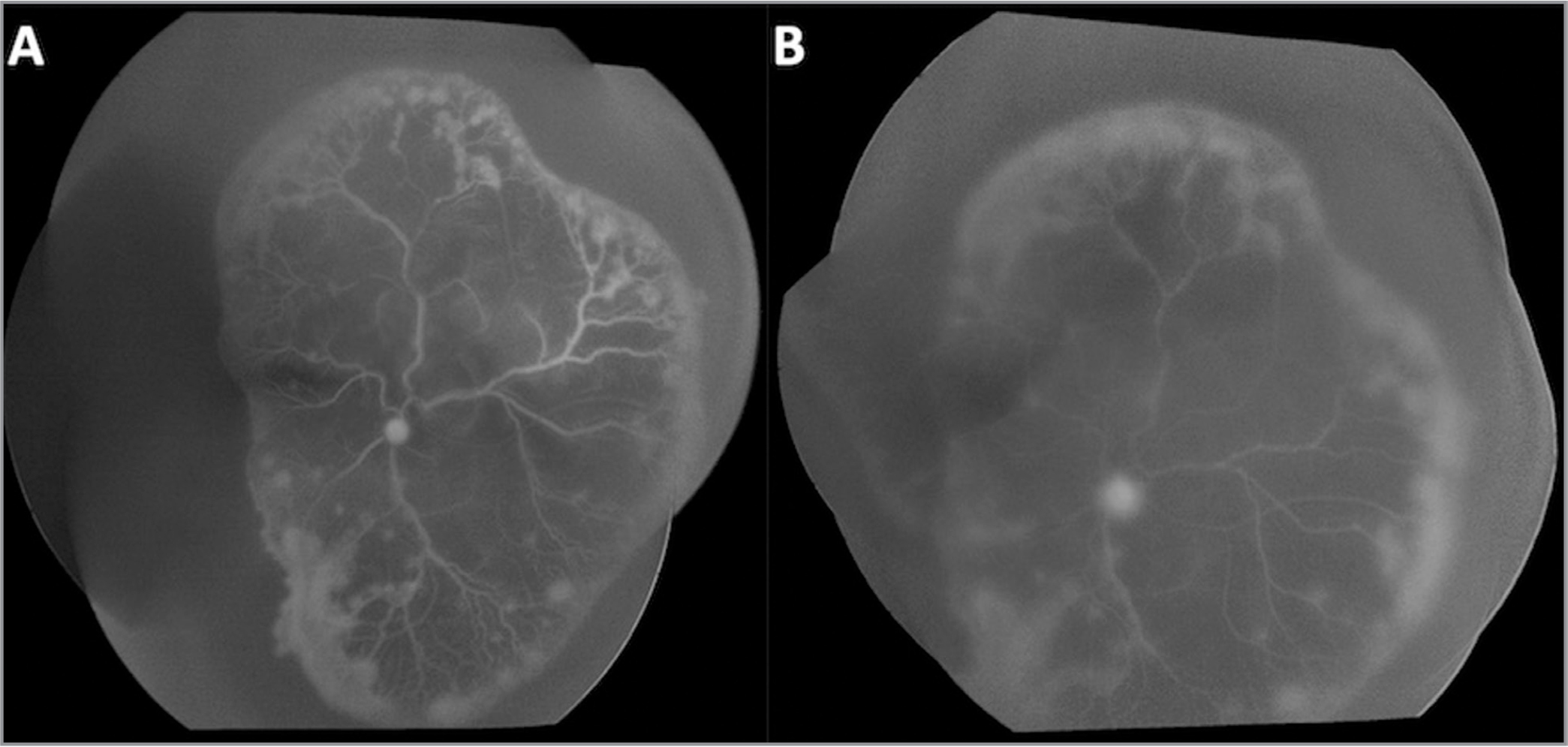 Fluorescein angiography of the right (A) and left (B) eyes at 34 weeks postmenstrual age demonstrating asymmetric, aggressive posterior retinopathy of prematurity.
