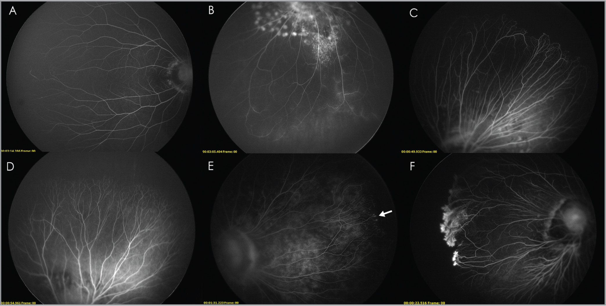 Fluorescein angiograms showing different vascular terminals. (A) Branch-like terminals. (B) Loops (laser photocoagulation around the disc was performed as a prophylactic treatment to retinal detachment.) (C) Networks. (D) Brush-like terminals. (E) Bulbous capillary terminals (white arrow). (F) Leakage from the vascular-avascular junction.
