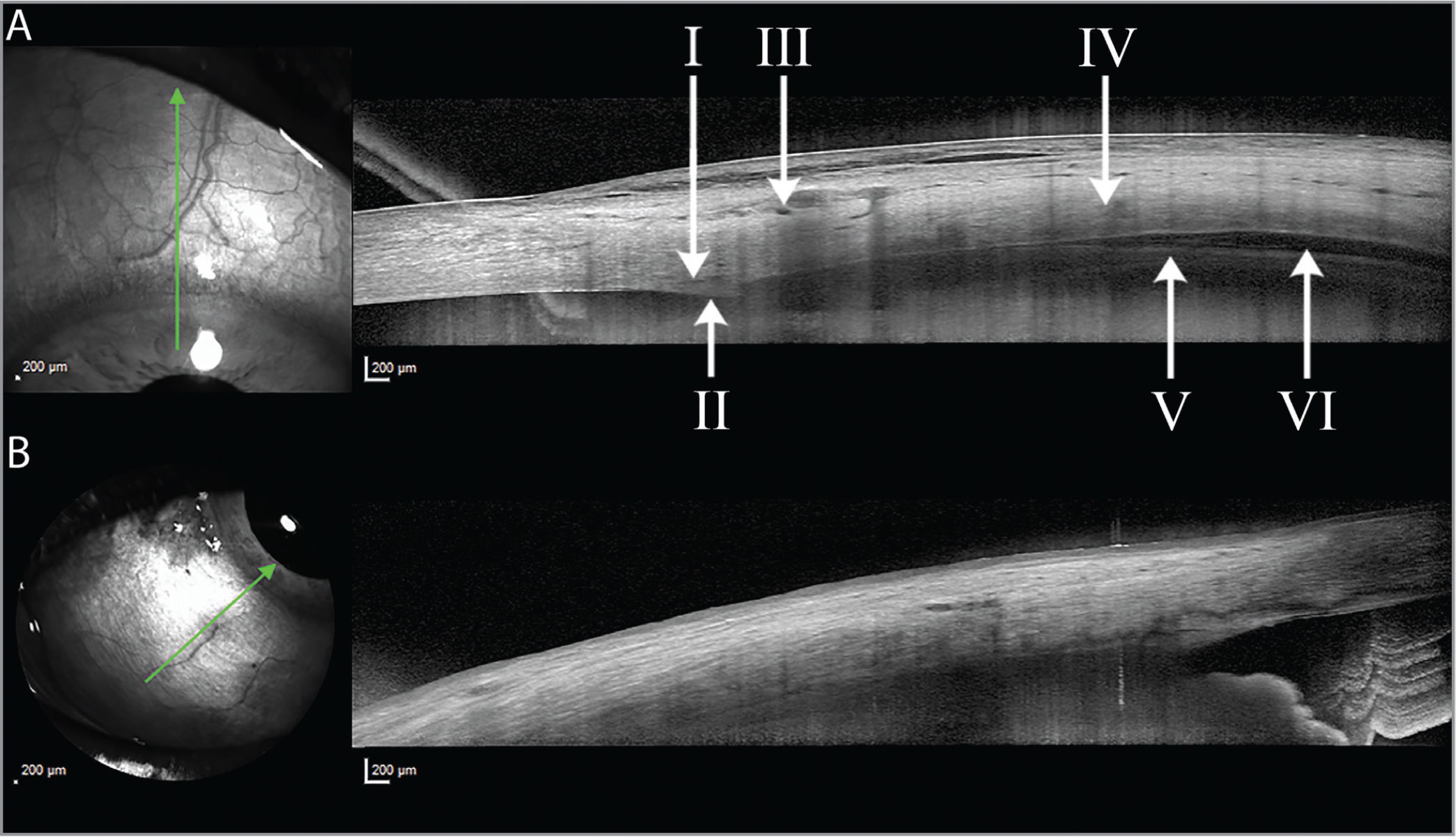 Anterior segment optical coherence tomography (AS-OCT) scan of the superior quadrant of a study patient after receiving a suprachoroidal injection of CLS-TA (A). From left to right: Schlemm's canal (I), scleral spur (II) episcleral vasculature (III), sclera (IV), choroid (V), suprachoroidal space (VI). Example of an AS-OCT scan excluded from analysis due to insufficient definition of the choroid (B).