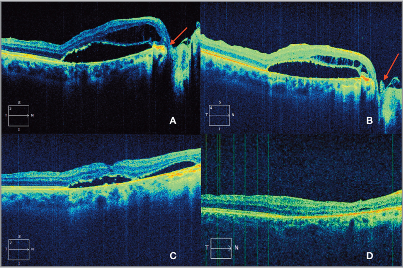 Optical coherence tomography (OCT) shows serous macular detachment with overlying retinoschisis and the connection to the subretinal fluid in the macula (A). OCT shows the internal limiting membrane plug inside the optic pit 1 month after surgery (B). Spectral-domain OCT demonstrates partial resolution of submacular fluid at the third month (C) and complete resolution at the tenth month after surgery (D).