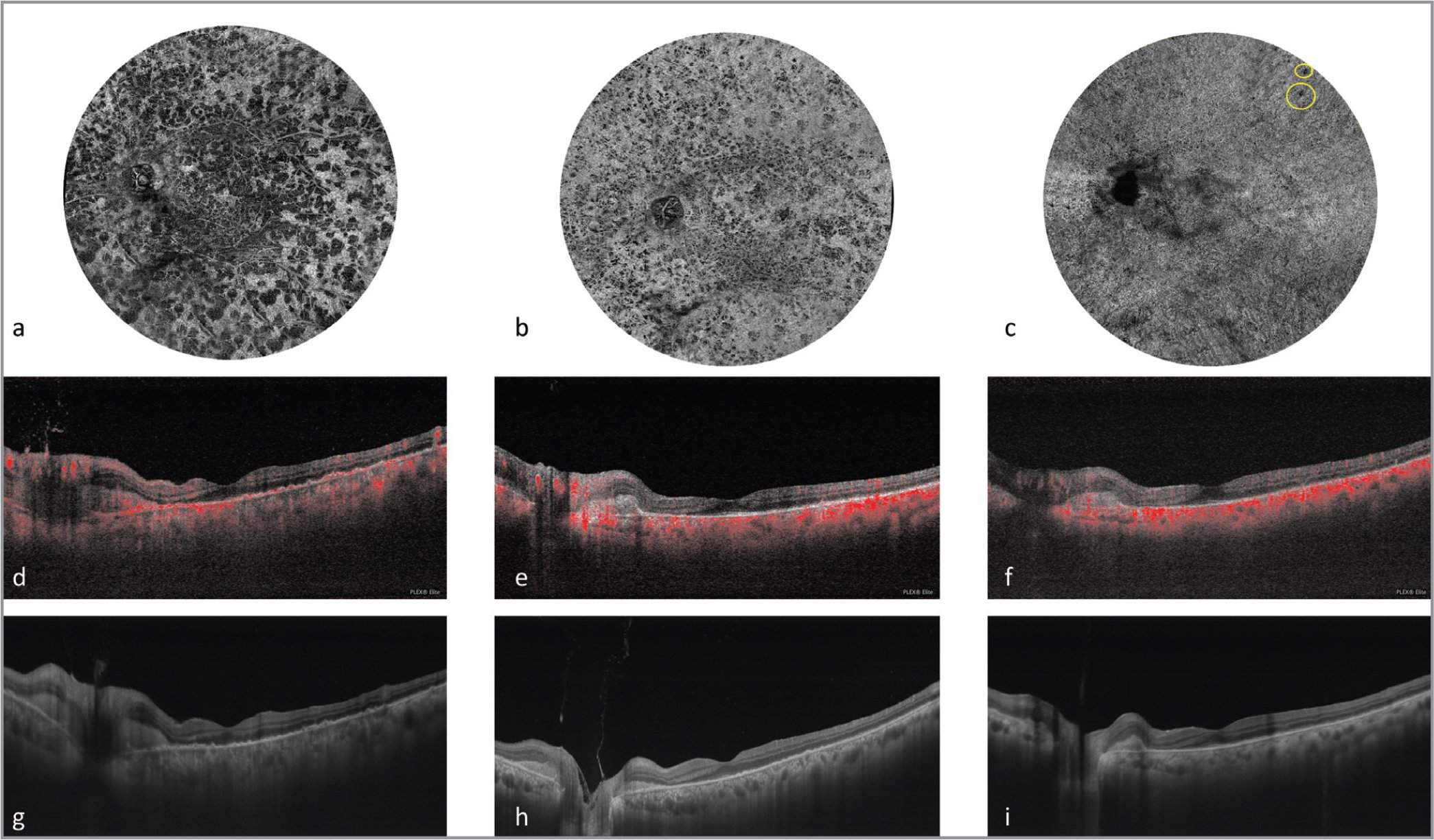 Serial swept-source optical coherence tomography (OCTA) montage scans of multiple 12 mm × 12 mm scans at the level of the choriocapillaries at presentation and follow-up (top row). There are multiple dark foci of flow voids of different shapes and sizes throughout the posterior pole consistent with likely choriocapillaris hypoperfusion at presentation. (a) At 3 months' follow-up, with initiation of systemic immunosuppression, there is a significant reduction in the size and number of these spots (b). At 6 months' follow-up, there is near complete resolution, with only a few flow voids still visible (yellow ovals, c). The optic nerve is darker in (c) due to a shadow artifact from overlying vitreous opacity. Structural OCT scans with flow overlay (middle row) show significant reduction of flow (red dots) at the level of the choriocapillaris and the choroid at presentation (d), with progressive restoration of flow at 3 months (e) and further at 6 months (f). Enhanced depth 16-mm horizontal OCT scans (bottom row) showing a very thickened choroid along with peripapillary subretinal hyperreflective material and multiple retinal pigment epithelium (RPE) drusenoid-like elevations in the macula at presentation (g). At 3 months, there is reduction in the peripapillary subretinal hyperreflective material and choroidal thickness along with partial restoration of the external limiting membrane and ellipsoid zone and reduction in the RPE drusenoid like elevations (h). By 6 months, there is near complete resolution of the RPE drusenoid-like elevations (i).
