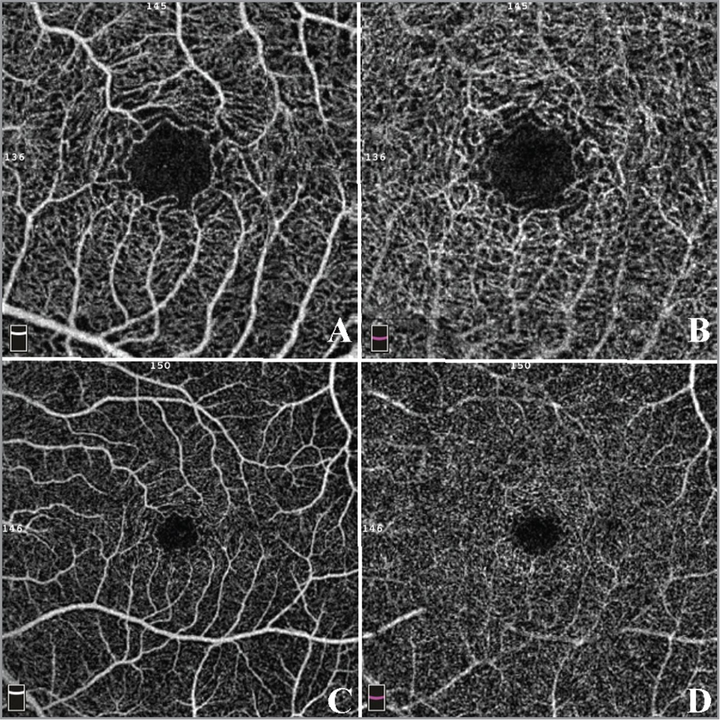 En face optical coherence tomography example of a patient with non-exudative age-related macular degeneration with no vascular abnormalities. (A) 3 × 3 superficial capillaries area. (B) 3 × 3 deep capillaries area. (C) 6 × 6 superficial capillaries area. (D) 6 × 6 deep capillaries area.