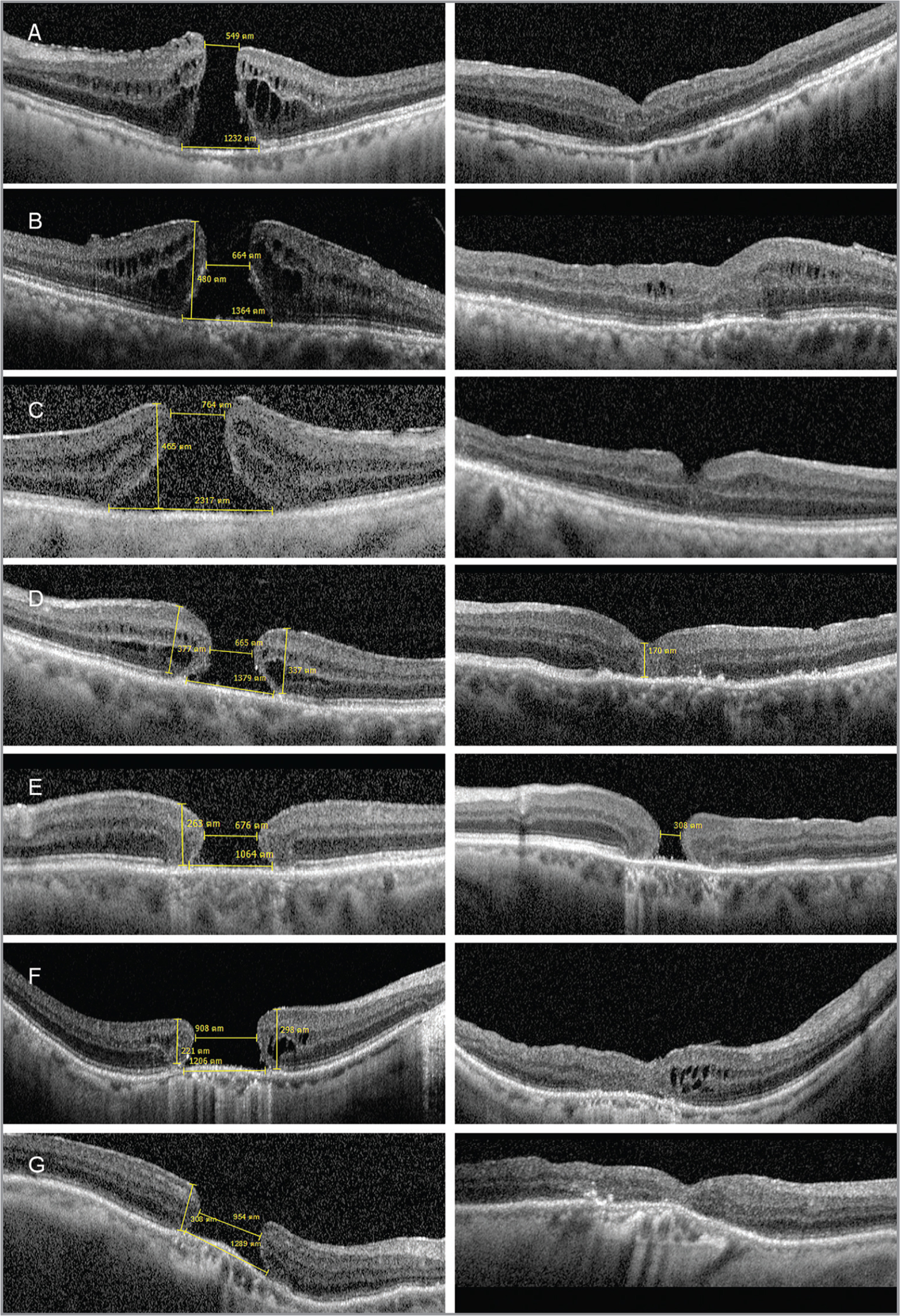 A demonstration of both preoperative optical coherence tomography (OCT) images with macular hole parameters on left column and postoperative OCT images at 6-month follow-up on right column. Case numbers were indicated by using consecutive letters on the left upper corner of each photo.