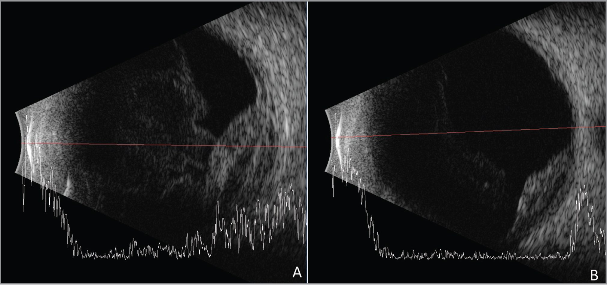 (A) An 87-year-old male on warfarin and aspirin presented with painful vision loss after an episode of uncontrollable coughing. The funduscopic exam was limited due to vitreous hemorrhage. On ultrasonography, a dome-shaped lesion with medium, variable internal reflectivity consistent with suprachoroidal hemorrhage (SCH) was noted. (B) Four weeks later, the SCH had decreased in size, which was confirmed with B-scan ultrasonography.