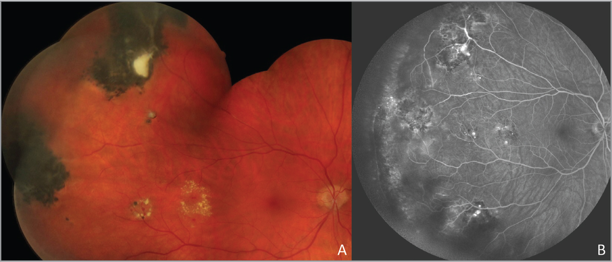 Fundus photograph of a cavernous hemangioma in a 42-year-old asymptomatic patient. Note the cluster of grape-like, thin-walled sacular angiomatous lesions (A) with the classic leakage on fluorescein angiography (B).