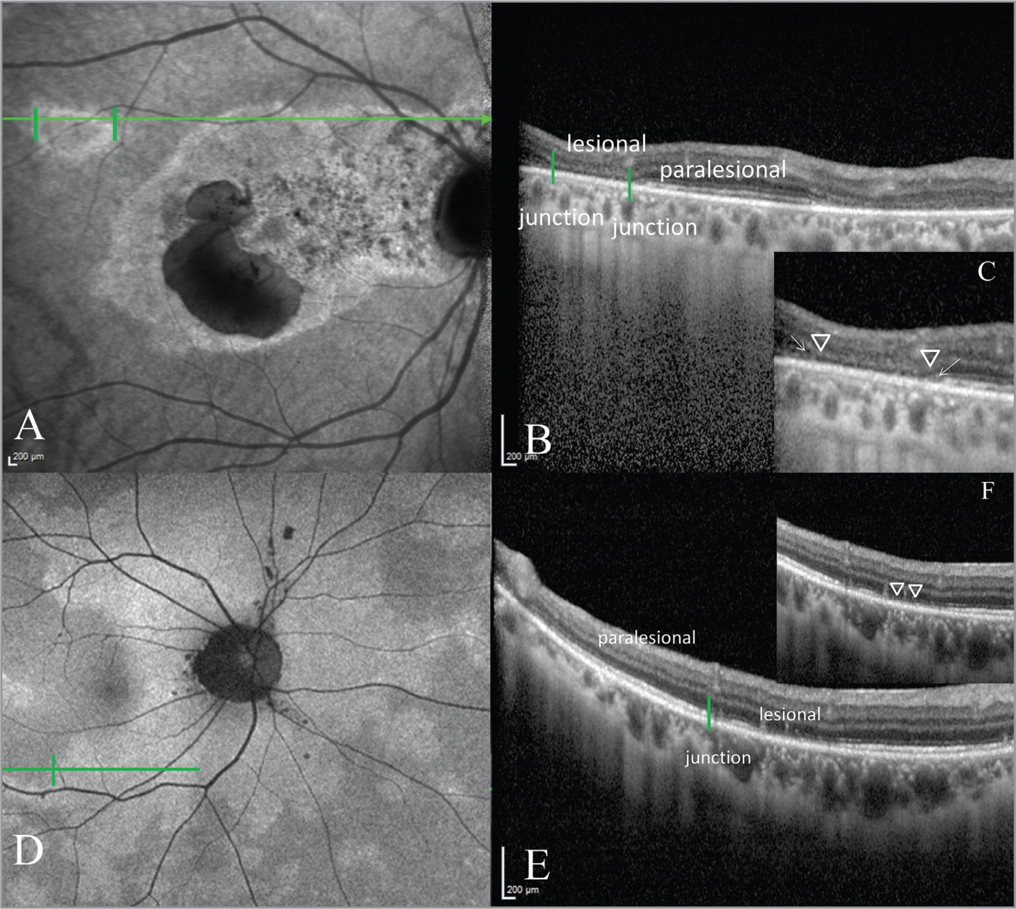 Near infrared fundus autofluorescence of the right eye of a patient with persistent hyperautofluorescence (A) with the lesion of interest demarcated in green and the corresponding optical coherence tomography (OCT) image (B). This demonstrated the loss of outer retinal layers, including the ellipsoid zone (EZ), external limiting membrane (ELM), and outer nuclear layer (ONL) in the lesional zone (C; arrowhead to arrowhead) and a flat ELM descent and outer plexiform layer (OPL) slope at the junctional zone (C; arrows). In D, we observe the border of a hyperautofluorescent zone in a patient with transient hyperautofluorescence. The OCT (E) demonstrates a disruption of the EZ in the lesional area (F; arrowhead to arrowhead) without ELM descent or OPL slope at the junction between the lesional and paralesional areas (E; green vertical line).
