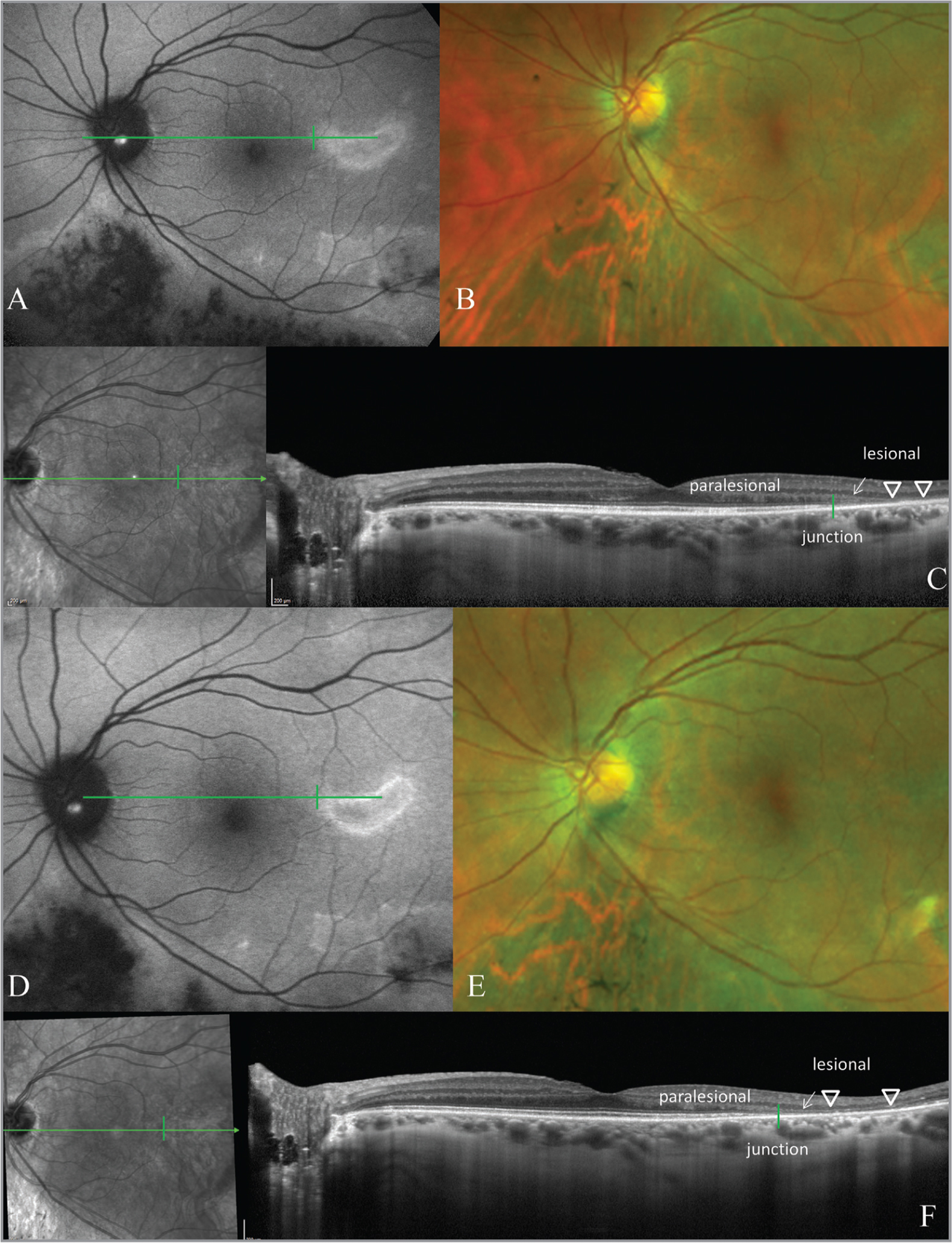 Fundus autofluorescence (FAF) (A) of the left eye of a patient with persistent hyperautofluorescence from 2013, with a multizonal distribution of the hyperautofluorescent lesions. The color fundus image (B) shows retinal pigment epithelium (RPE) changes inferior to the disc. Optical coherence tomography (OCT) through the patchy lesion (C) demonstrates a loss of ellipsoid zone and outer retinal layers (arrow). There is a descent of the outer plexiform layer (OPL) at the junctional zone (vertical line). Figures D-F are from 3 years later, in 2016. There is a subtle reduction in the hyperautofluorescence in the nasal aspect of the patchy lesion (D) which otherwise retains a consistent size and distribution. The color image demonstrates some RPE migration nasal to the disc (E) but is otherwise unchanged. The OCT remained stable (F).