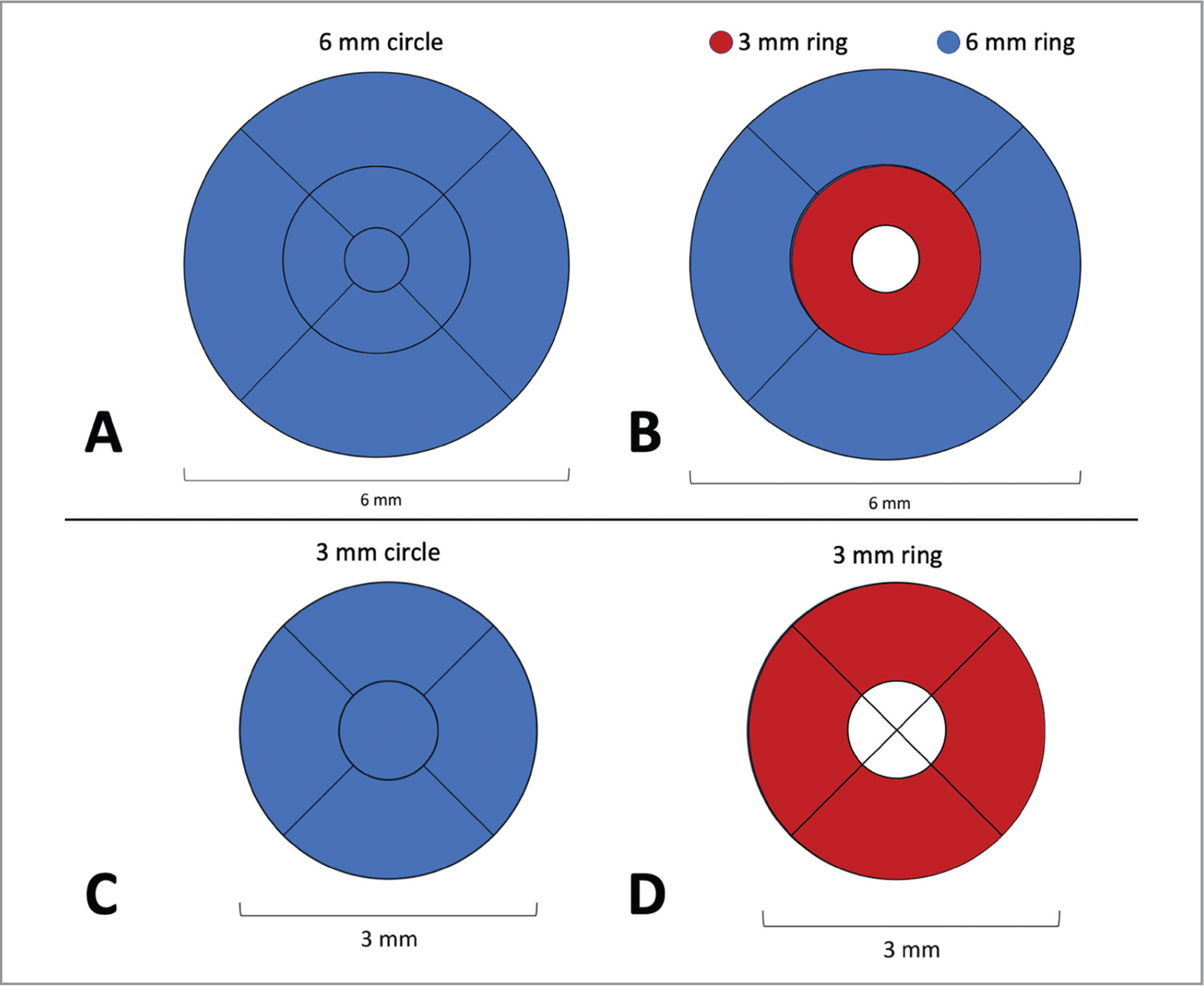 Diagram showing the Early Treatment Diabetic Retinopathy Study grid region overlay used for calculation of the vessel density (VD) and perfusion density (PD) in the different regions. (A) Representation of a 6 mm × 6 mm optical coherence tomography angiography (OCTA) scan with the area in blue representing the 6-mm circle. (B). Representation of a 6 mm × 6 mm OCTA scan with the area in blue representing the 6-mm ring and the area in red representing the 3-mm ring. (C). Representation of a 3 mm × 3 mm OCTA scan with the area in blue representing the 3-mm circle. (D). Representation of a 3 mm × 3 mm OCTA scan with the area in red representing the 3-mm ring. VD and PD values for each respective region were calculated by averaging values over the highlighted areas.