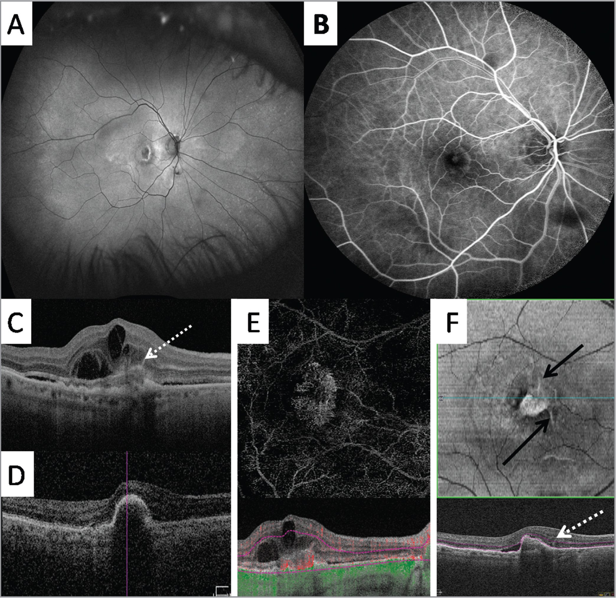 "Fundus autofluorescence (A), fluorescein angiography (B), optical coherence tomography (OCT) (C, D), en face OCT angiography (OCTA) (E), and en face structural OCT (F) images from an 84-year-old man with type 2 CNV secondary to age-related macular degeneration. Linear extensions (ie, ""pitchfork"" sign) are noted with the baseline cross-sectional OCT (C, F, dashed arrow), and these resolved after intravitreal bevacizumab therapy (D). Note the evolution into a type 1 neovascular lesion (D). Type 2 CNV is present with en face OCTA (E). The hyperreflective spikes are more clearly identified with baseline en face OCT segmentation of the outer retina (solid arrows, F) in a radial or wreath-like pattern."