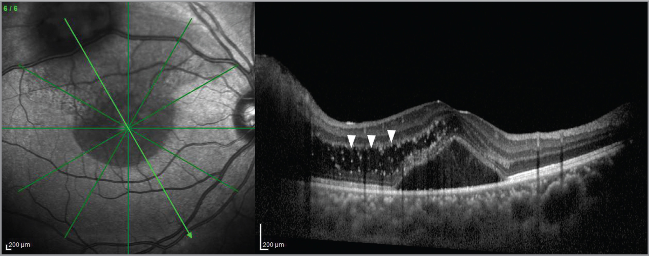 Optical coherence tomography of macula shows macular edema (arrow head) with subretinal fluid involving the fovea originating from the superotemporal arcade astrocytic hamartoma lesion.