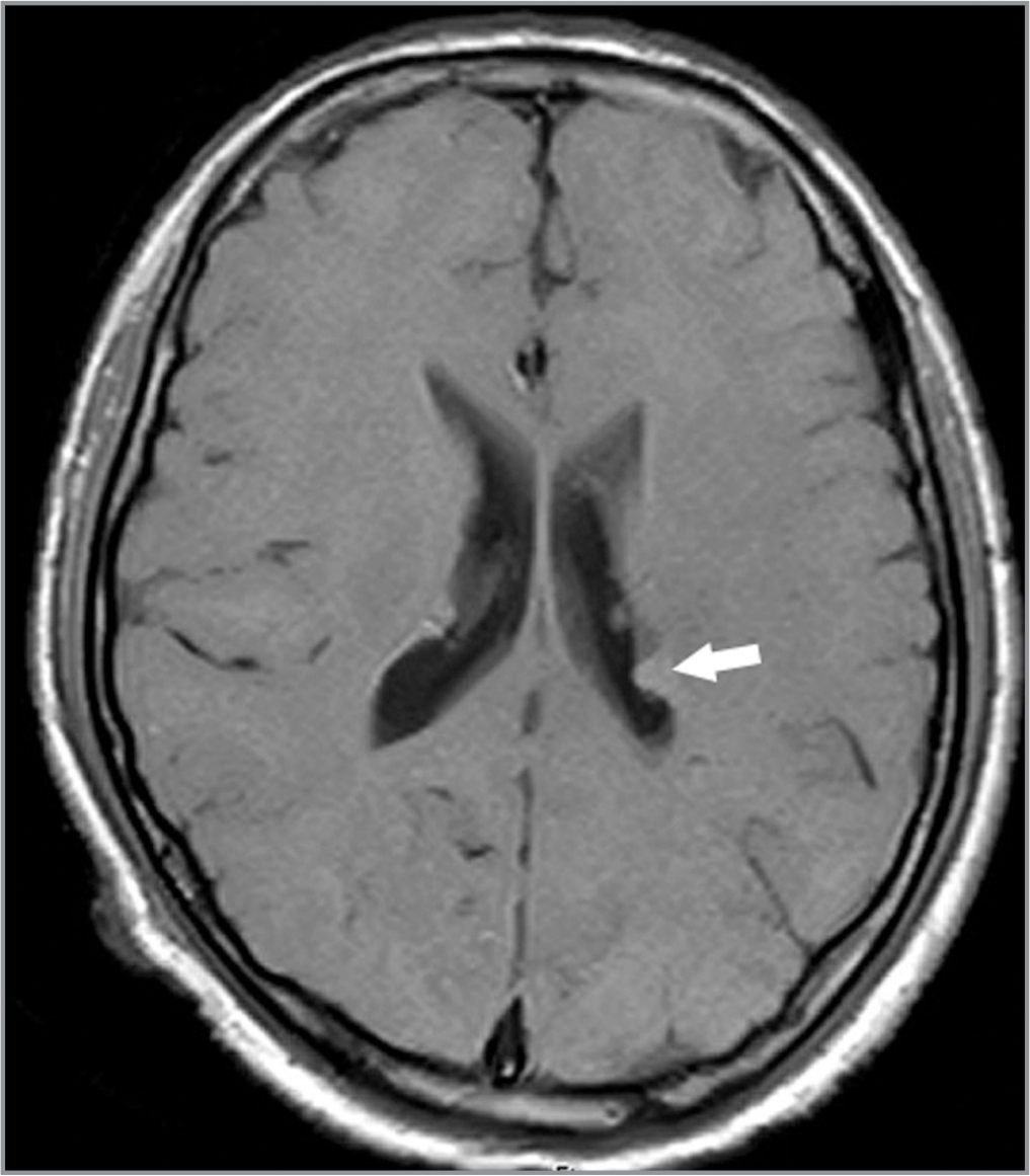 T1 MRI of the brain shows prominent, slightly hyperintense lesions arising from outlines of the ventricles (arrow), which are consistent with subependymal nodules of tuberous sclerosis.