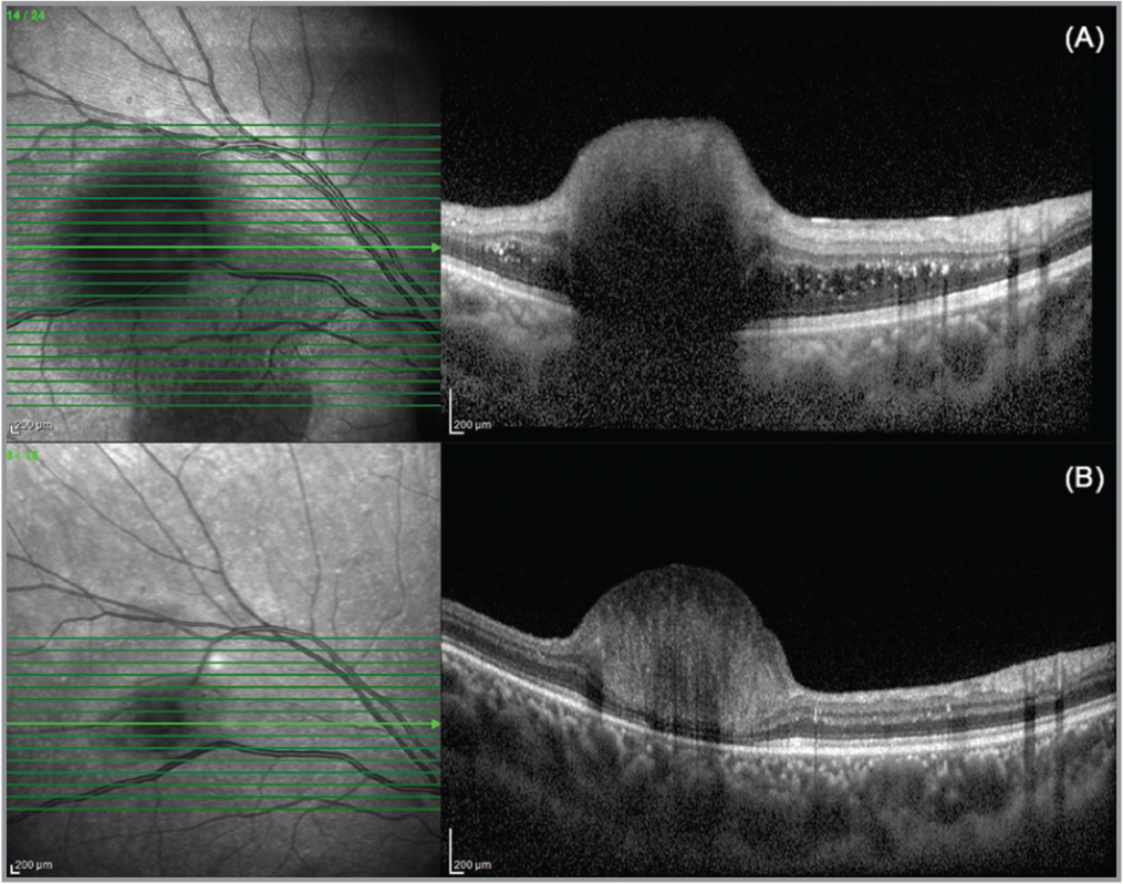 Optical coherence tomography images show the increase of internal translucency of the astrocytic hamartoma lesion on (A) at presentation and (B) after 10-month follow-up.