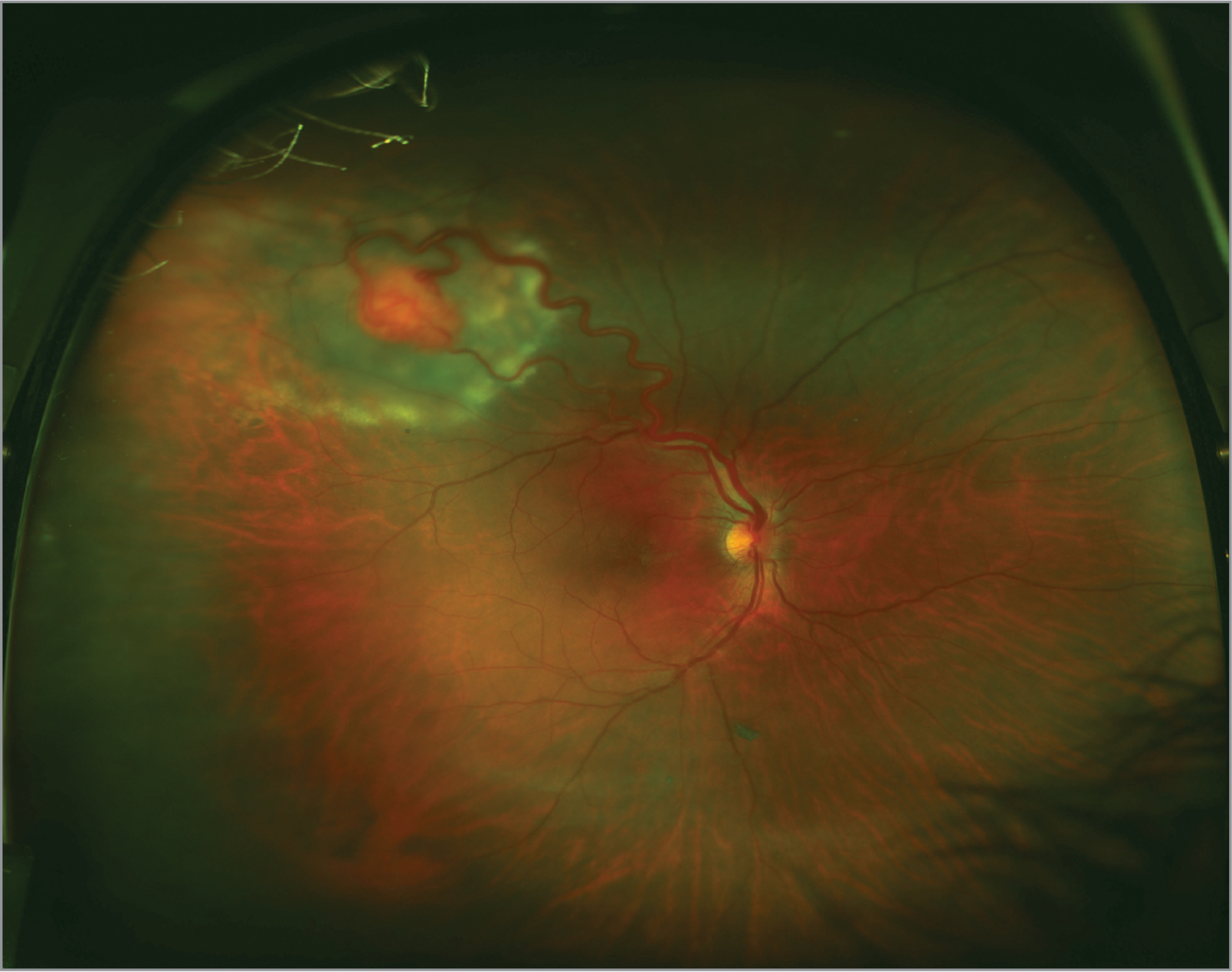 Widefield fundus photo of a large retinal hemangioblastoma with surrounding exudates and subretinal fluid.