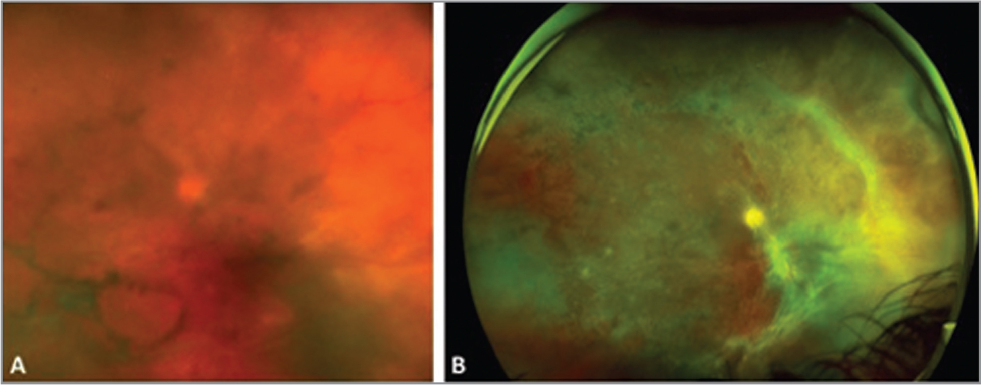Photo of the right eye of a patient with rapid progression of acute retinal necrosis following intravitreal corticosteroid (A). She eventually developed a retinal detachment prompting vitrectomy, endolaser, and silicone oil instillation but developed significant fibrovascular proliferation (B).
