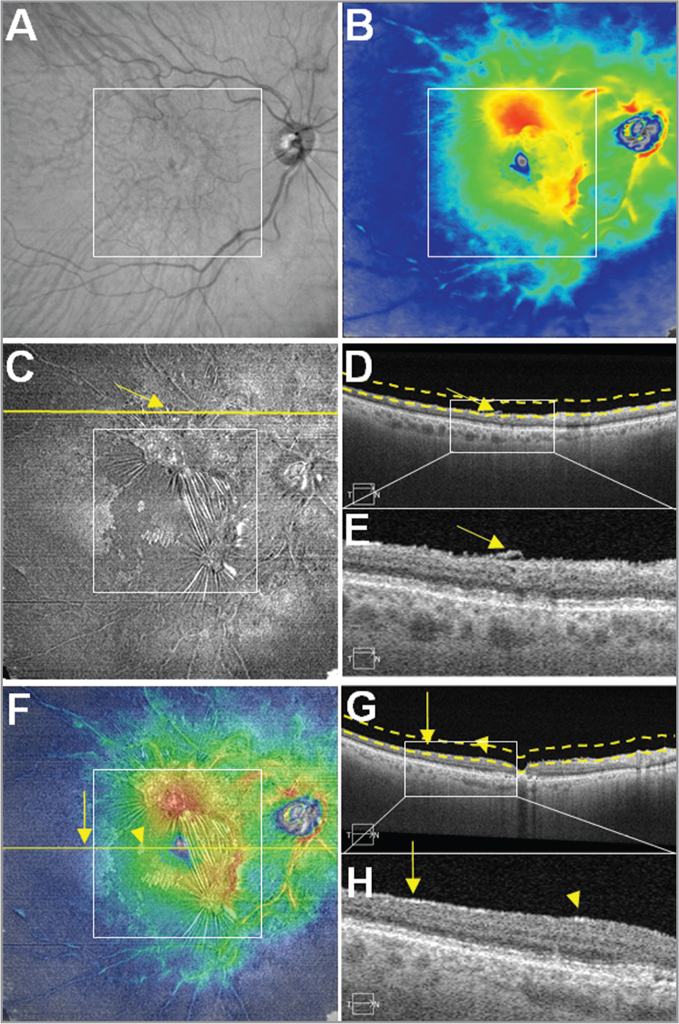 Case No. 3: Multi-segmented images from a single 12 mm × 12 mm swept-source optical coherence tomography (SS-OCT) scan of an epiretinal membrane (ERM) in the right eye of an 85-year-old woman. The white square boxes centered on the fovea in panels A, B, C, and F represent a 6 mm × 6 mm field of view (FOV). (A) OCT fundus image. Superior arcade reveals asymmetrical vessel tortuosity. (B) Retinal thickness map (RTM). Observe the disturbances of macular thickness. (C) Vitreoretinal interface (VRI) en face image. The image shows a hyperreflective ERM, which is composed of two focal adherences. Both are present within and spread outside the 6 mm × 6 mm FOV. Yellow arrows in images C, D, and E designate a digit of the superior focal adherence stretching outside 6 mm × 6 mm. (D) B-scan corresponding to the yellow line outside the 6 mm × 6 mm white square shown in image C. Dashed lines define the upper and lower boundaries of the VRI en face slab. (E) Magnification of the white rectangle of the image D. This demonstrates the extent of the ERM outside the 6 mm × 6 mm FOV, as well as retinal folds. (F) Overlay of Panel B (60% transparency) on top of Panel C. Yellow horizontal line represents the foveal B-scan. Yellow vertical arrow in Panels F, G, and H highlight the extent of the ERM outside the 6 mm × 6 mm FOV, whereas the yellow arrowheads designate an isolated foci of the ERM within the 6 mm × 6 mm FOV. (G) Foveal B-scan. Dashed lines define the upper and lower boundaries of the VRI en face slab. (H) Magnified B-scan from within the white square shown in Panel G. The ERM extends from inside the 6 mm × 6 mm FOV (yellow arrowhead) to outside the 6 mm × 6 mm FOV (yellow vertical arrow). Observe the interruption of the ERM from inside (yellow arrowhead) to the outside (yellow vertical arrow) 6 mm × 6 mm FOV.
