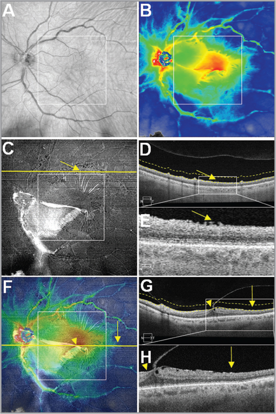 Case No. 4: Multi-segmented images from a single 12 mm × 12 mm swept-source optical coherence tomography (SS-OCT) scan of an epiretinal membrane (ERM) associated with incomplete posterior vitreous detachment (PVD) in the left eye of a 62-year-old man. The white square boxes centered on the fovea in panels A, B, C, and F represent a 6 mm × 6 mm field of view (FOV). (A) OCT fundus image. Observe the asymmetrical vessel tortuosity predominant in the superior arcade. (B) Retinal thickness map (RTM). Inspect the disturbances of macular thickness. (C) Vitreoretinal interface (VRI) en face image. The image shows a hyperreflective ERM, whereas posterior hyaloid associated with ERM is well-lighted in white. Yellow arrows in images C, D, and E emphasize the traction component of the ERM that leads to retinal folds. (D) B-scan corresponding to the yellow line outside the 6 mm × 6 mm white square shown in image C. Dashed lines define the upper and lower boundaries of the VRI en face slab. (E) Magnification of the white rectangle of the image D. This demonstrates the extent of the ERM outside the 6 mm × 6 mm FOV as well as retinal folds. (F) Overlay of Panel B (60% transparency) on top of Panel C. Yellow horizontal line represents the foveal B-scan. Yellow vertical arrow in Panels F, G, and H highlight the extent of the ERM outside 6 mm × 6 mm FOV. The fusion of the posterior hyaloid and ERM unveils intense hyperreflectivity. (G) Foveal B-scan. Dashed lines define the upper and lower boundaries of the VRI en face slab. (H) Magnified B-scan from within the white square shown in Panel G. The ERM extends from inside the 6 mm × 6 mm FOV (yellow arrowhead) to outside the 6 mm × 6 mm FOV (yellow vertical arrow). Observe the inverted foveal depression associated with intraretinal cystic spaces, presence of ERM in the temporal side and in the nasal side posterior vitreous adherence associated with ERM enhancing hyperreflectivity and incomplete PVD.