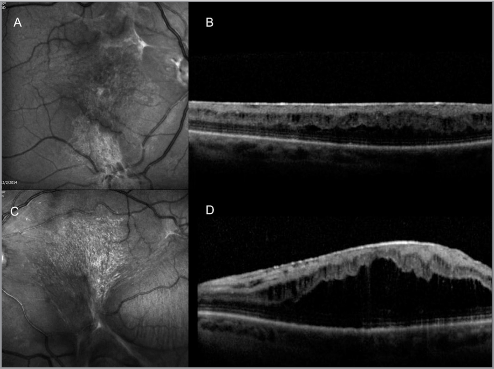 "Six months after autologous ""stem cell"" injections (ASCIs), the red-free photo (A) and optical coherence tomography (OCT) (B) of the right eye show a dense epiretinal membrane (ERM) with loss of the foveal contour. The OCT shows cystoid macular edema (CME) with appearance of outer retinal schisis. Red-free photo of the left eye (C) shows a denser ERM that is causing tenting of the retina. The OCT of the left eye (D) shows that the ERM is accompanied by severe CME that has resulted in a large schisis cavity that disrupts the photoreceptor segments."