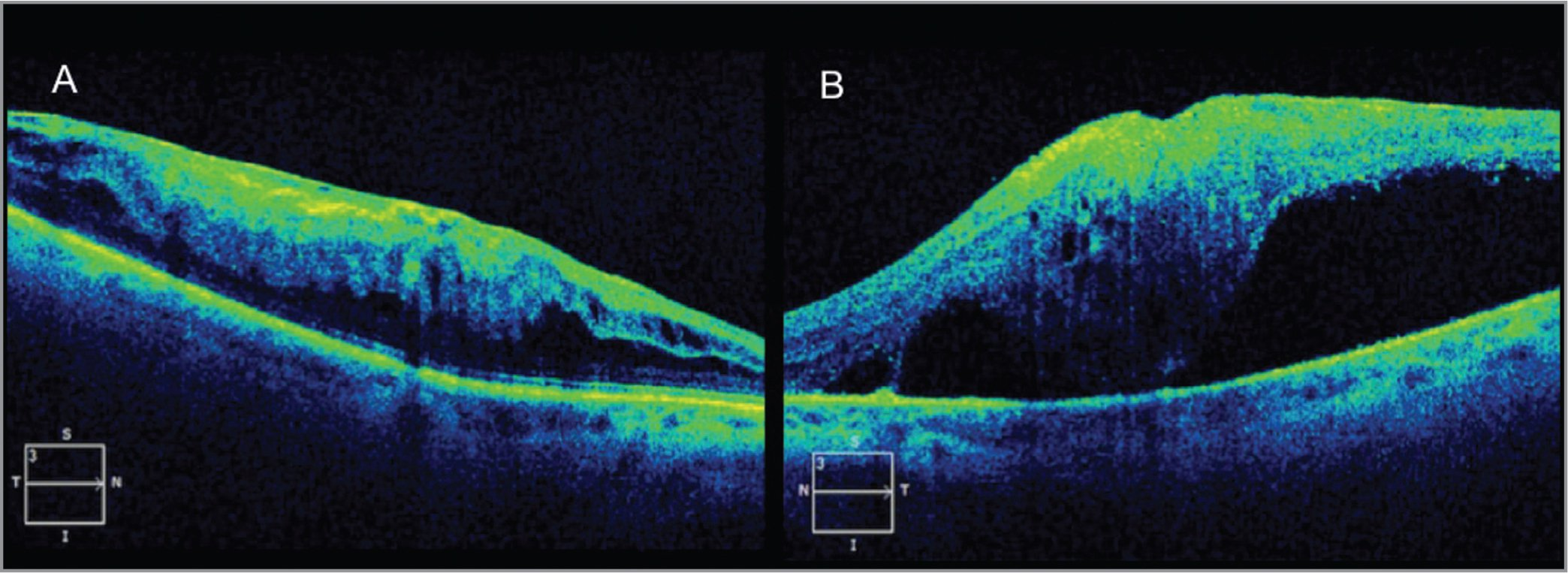 "At last follow-up (17 months after autologous ""stem cell"" injections [ASCIs] and 6 months after retinal detachment repair in the left eye), the optical coherence tomography (OCT) of the right eye (A) shows stable appearance of the epiretinal membrane. OCT of the left eye (B) shows that the macula has re-detached."