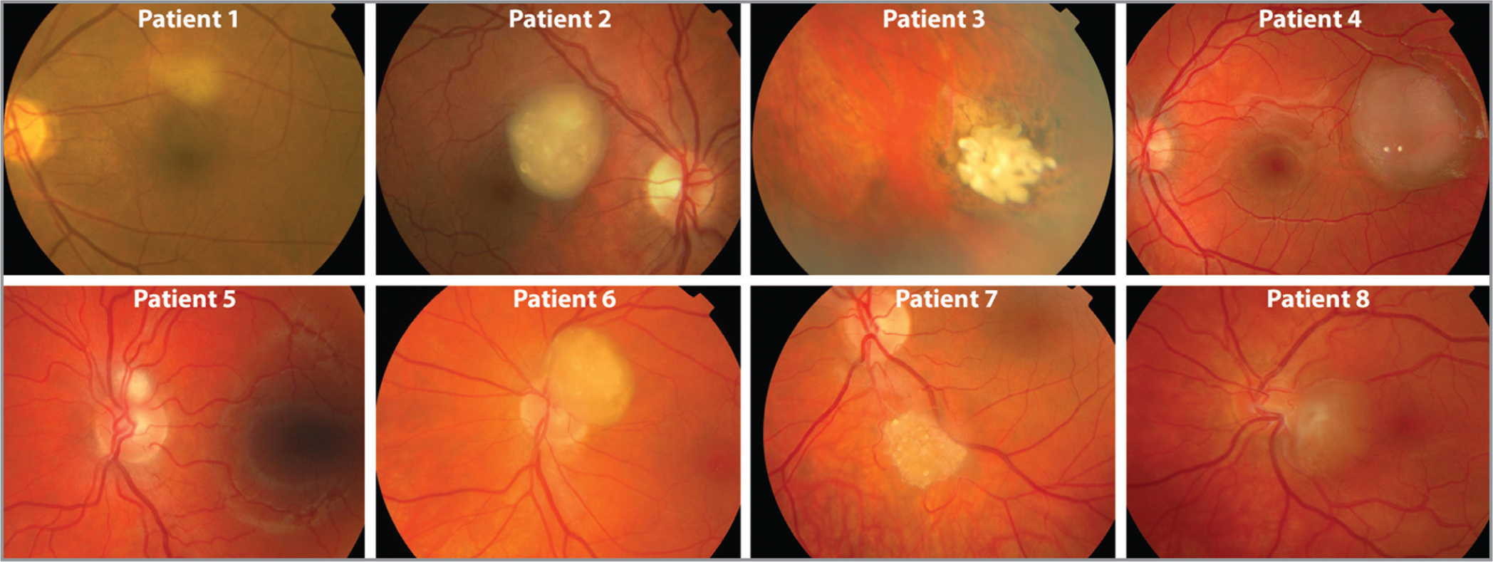Color fundus photographs of all patients upon presentation. Images are numbered corresponding to the patient labels consistent in other Tables and Figures.