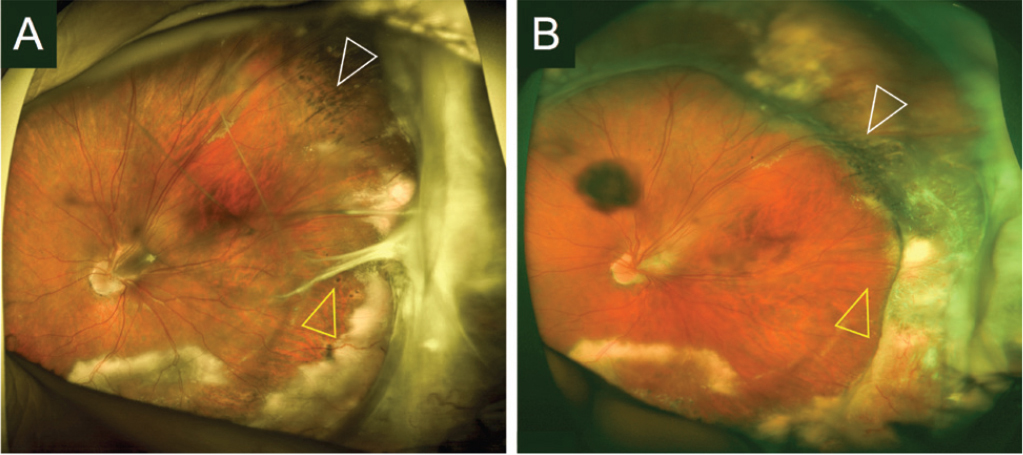 Widefield color fundus photograph of the left eye before (A) and after (B) 23-gauge pars plana vitrectomy with encircling scleral buckle in a 17-year-old boy with familial exudative vitreoretinopathy. Temporal dragging of retinal vessels, intense peripheral exudation, and vitreoretinal tractions (yellow arrow head) were present before surgery (A). Peripheral indentation (white arrow head) and resolution of vitreoretinal tractions (yellow arrow head) are noted after surgery (B).