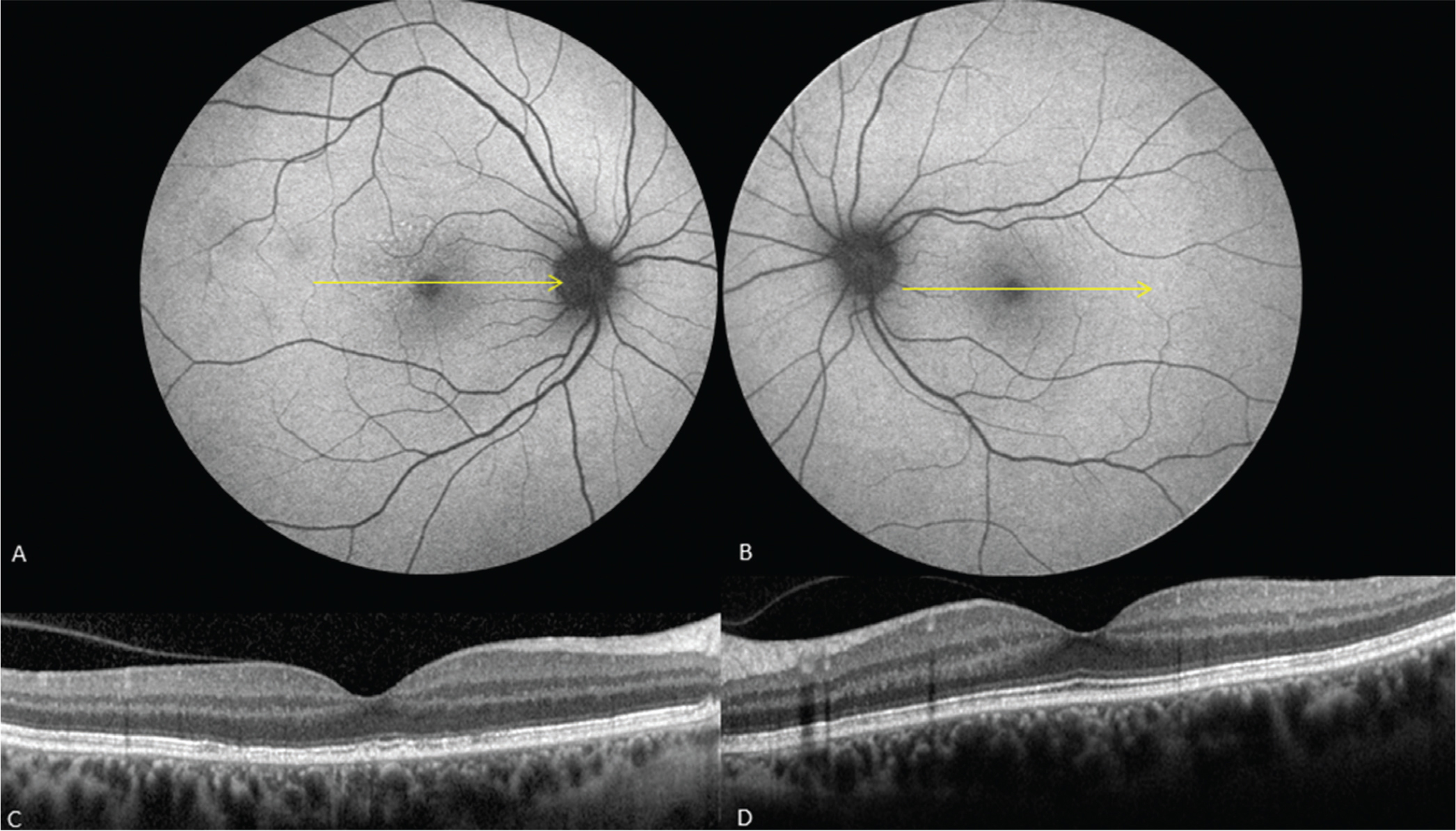 Post-treatment 5-week follow-up. (A, B) Fundus autofluorescence reveals near complete resolution of the hyperautofluorescent spots. (C, D) Optical coherence tomography (OCT) restoration of the ellipsoid zone bilaterally, and improvement in retinal pigment epithelium clumps in the right eye. The location of spectral-domain OCT B-scans is shown by yellow arrows on the corresponding fundus autofluorescent scans.