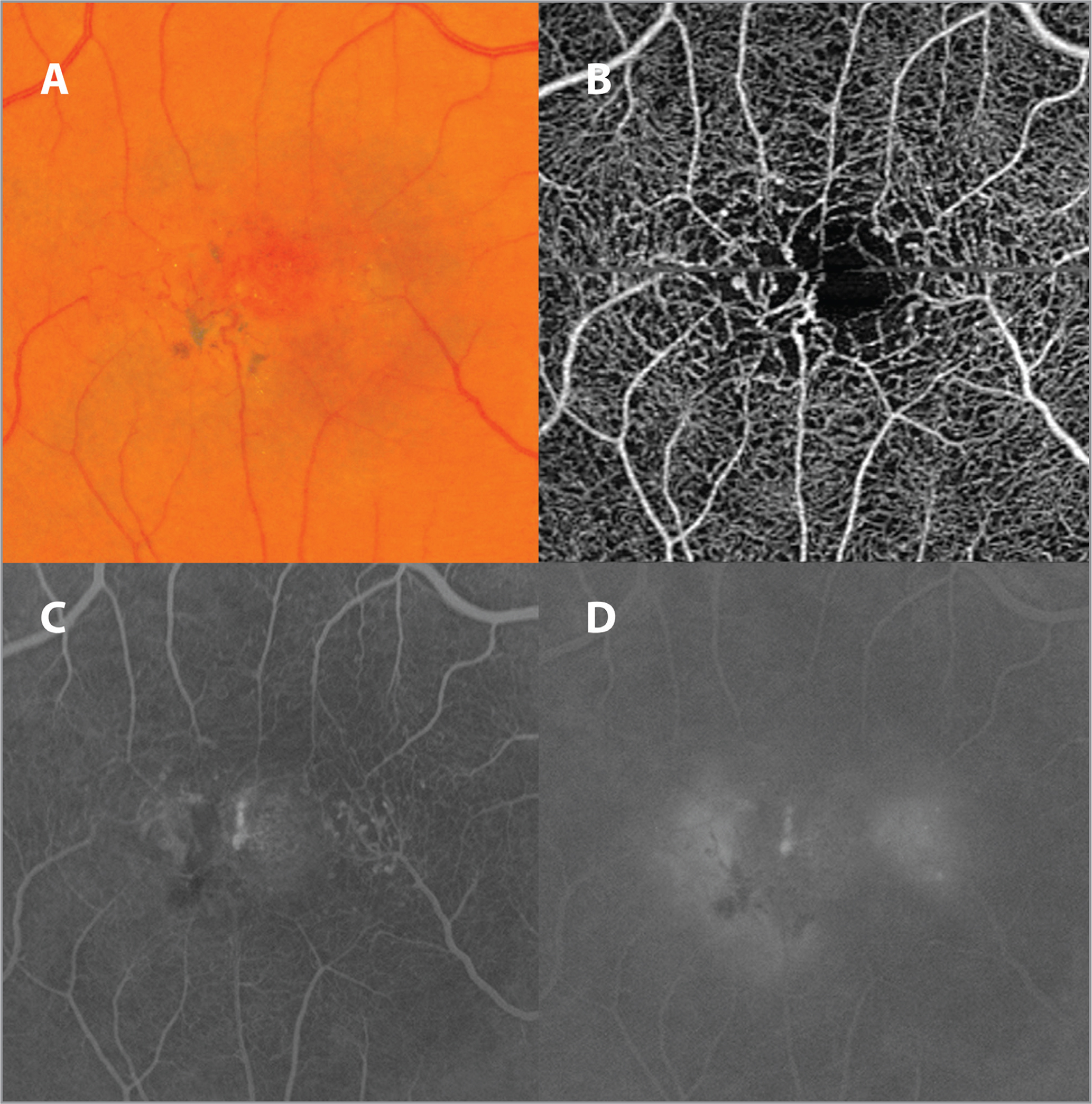 Central macula of an eye with idiopathic juxtafoveal retinal telangiectasia type 2 (MacTel). (A) A color fundus photograph shows telangiectatic parafoveal vessels, right-angle venules, subtle crystal deposition, and patches of retinal pigment epithelium hyperplasia. (B) A corresponding optical coherence tomography angiography image shows focal dilation and alterations in foveal capillaries most prominent temporally. (C) An early frame of the fluorescein angiogram shows capillary telangiectasia, with blocking from areas of intraretinal pigment. (D) A late frame of the fluorescein angiogram shows capillary leakage.