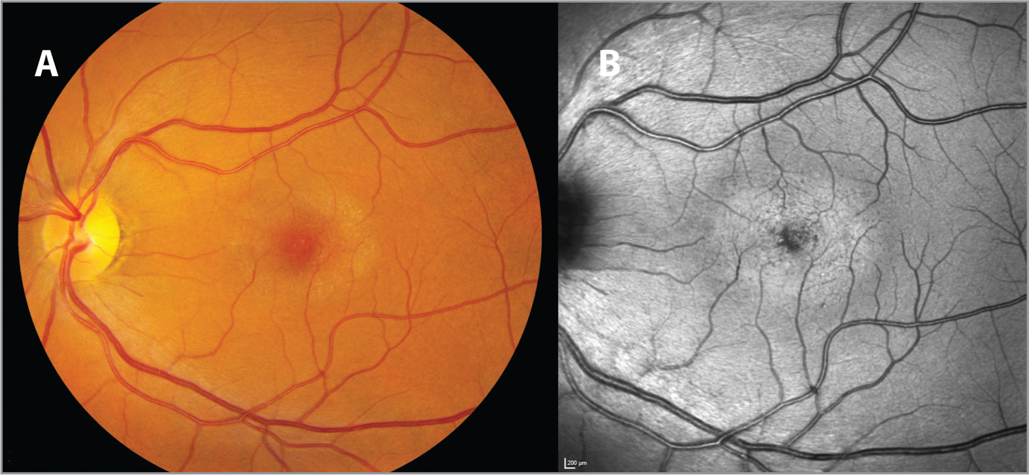 (A) A color fundus photograph shows a prominent perifoveal gray sheen, a variable feature of MacTel. (B) A corresponding blue reflectance image obtained using a 488-nm laser (blue reflectance mode) on the Spectralis HRA+OCT shows a prominent bright halo.