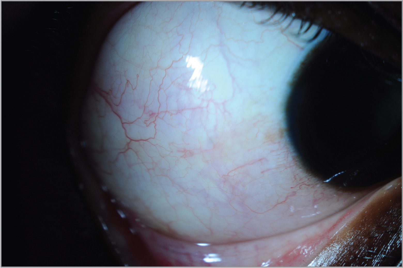 Anterior segment photograph of the right eye demonstrating mild, perilimbal vascular tortuosity, mild conjunctival hyperemia, and diffuse pink episcleral vascular congestion.